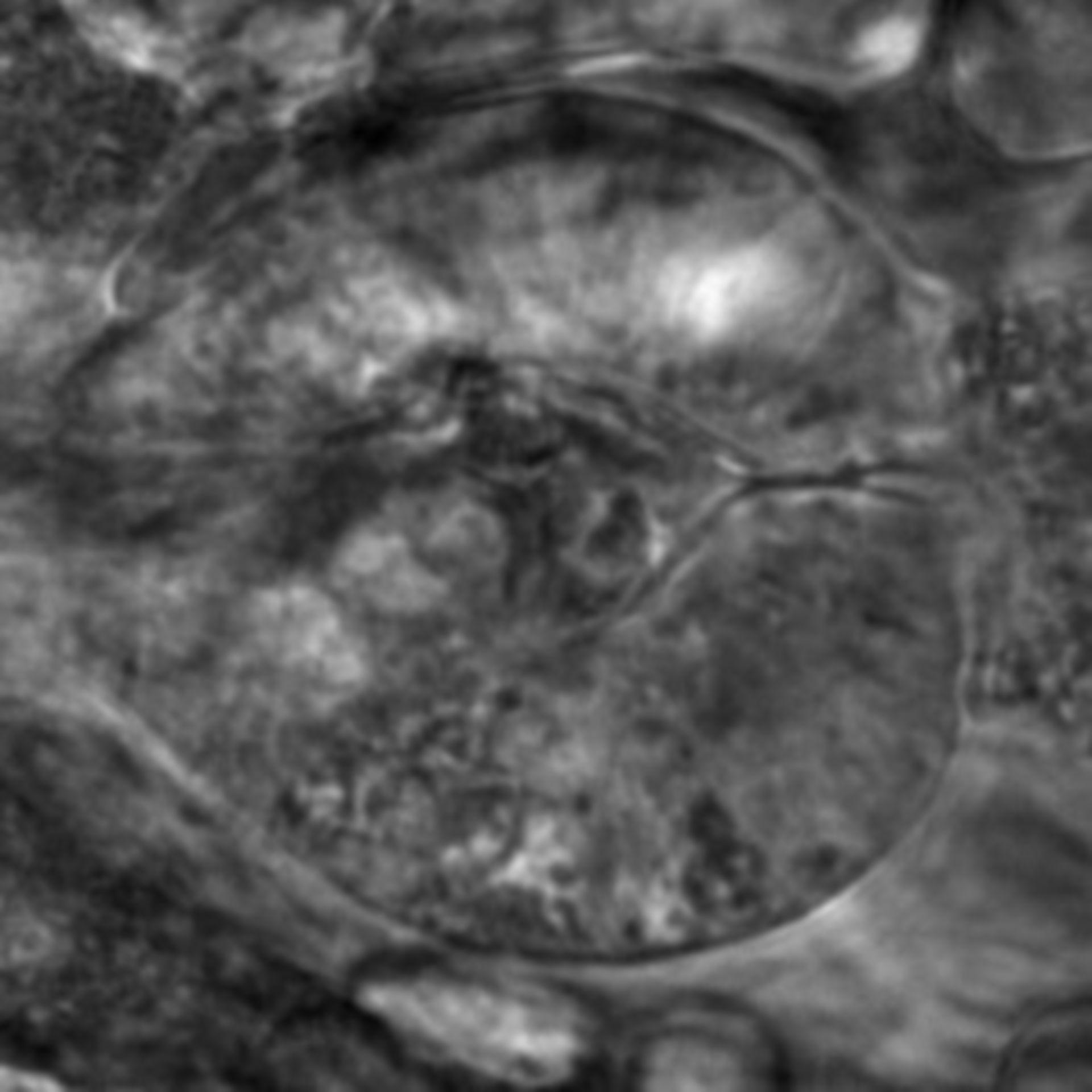 Caenorhabditis elegans - CIL:2704