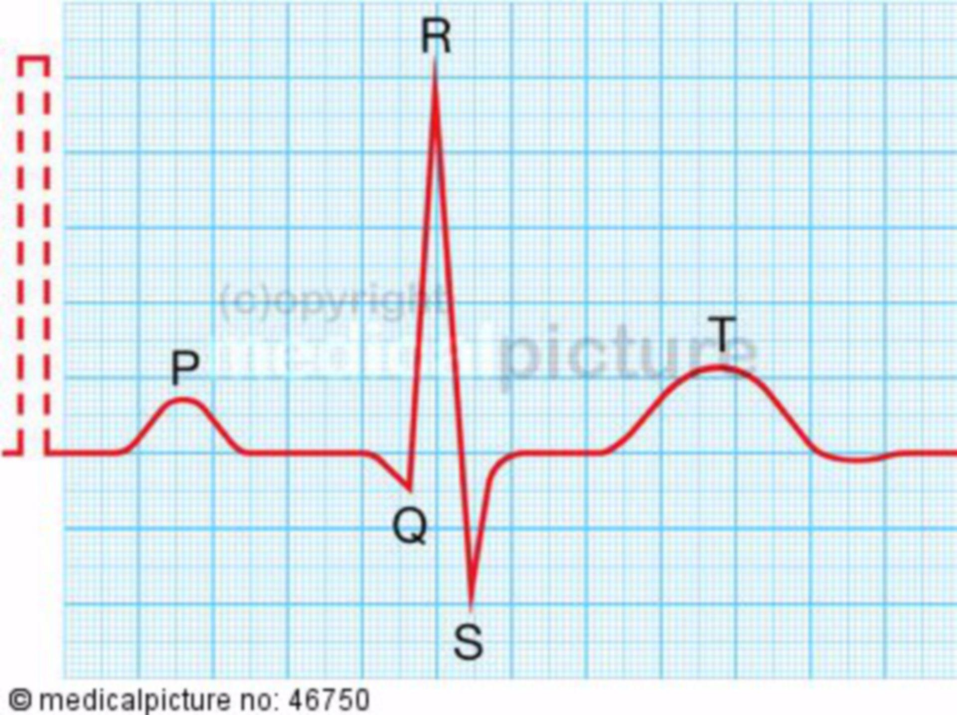 EKG, Sinusrhythmus