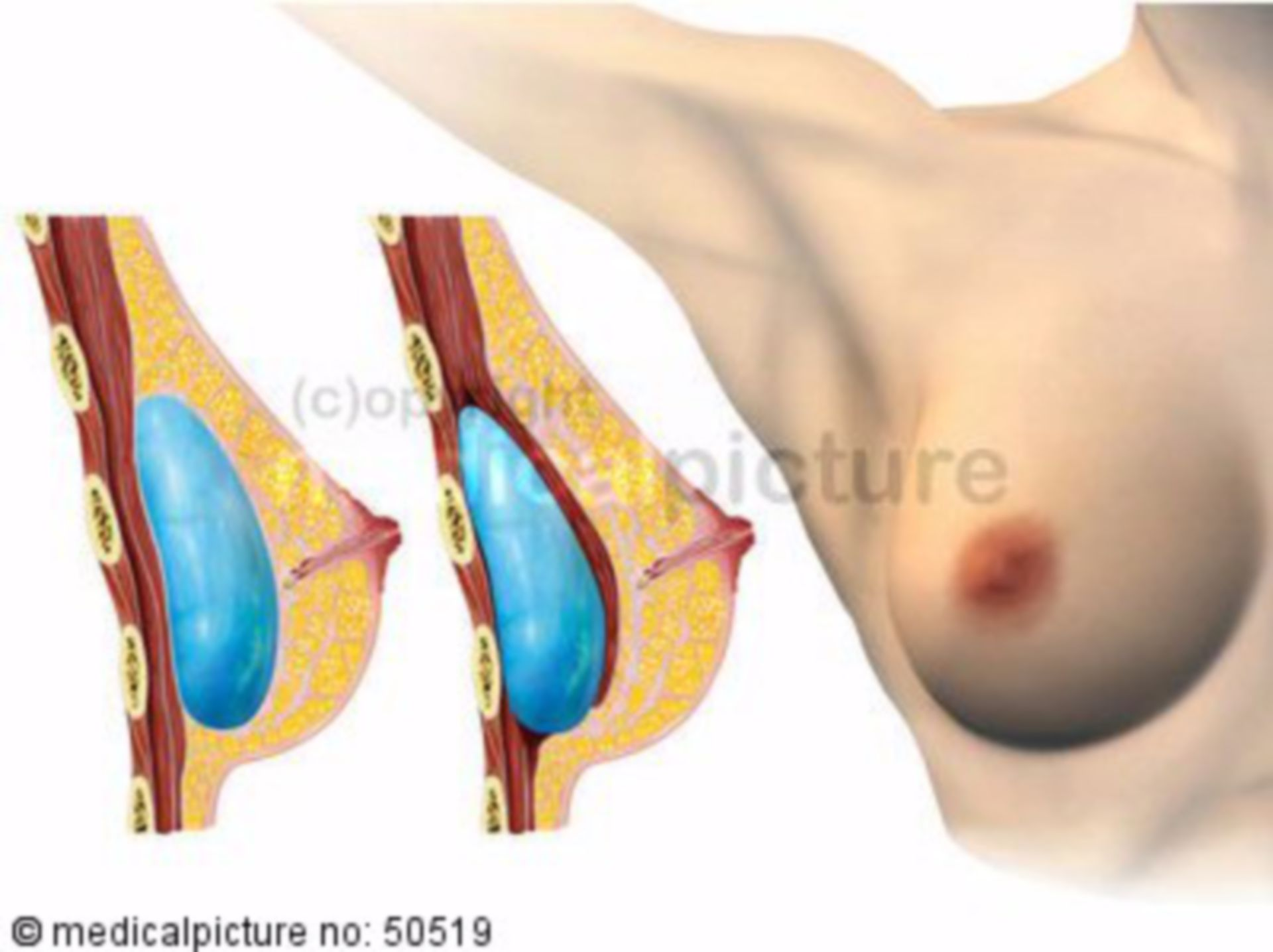 Breast implant/augmentation