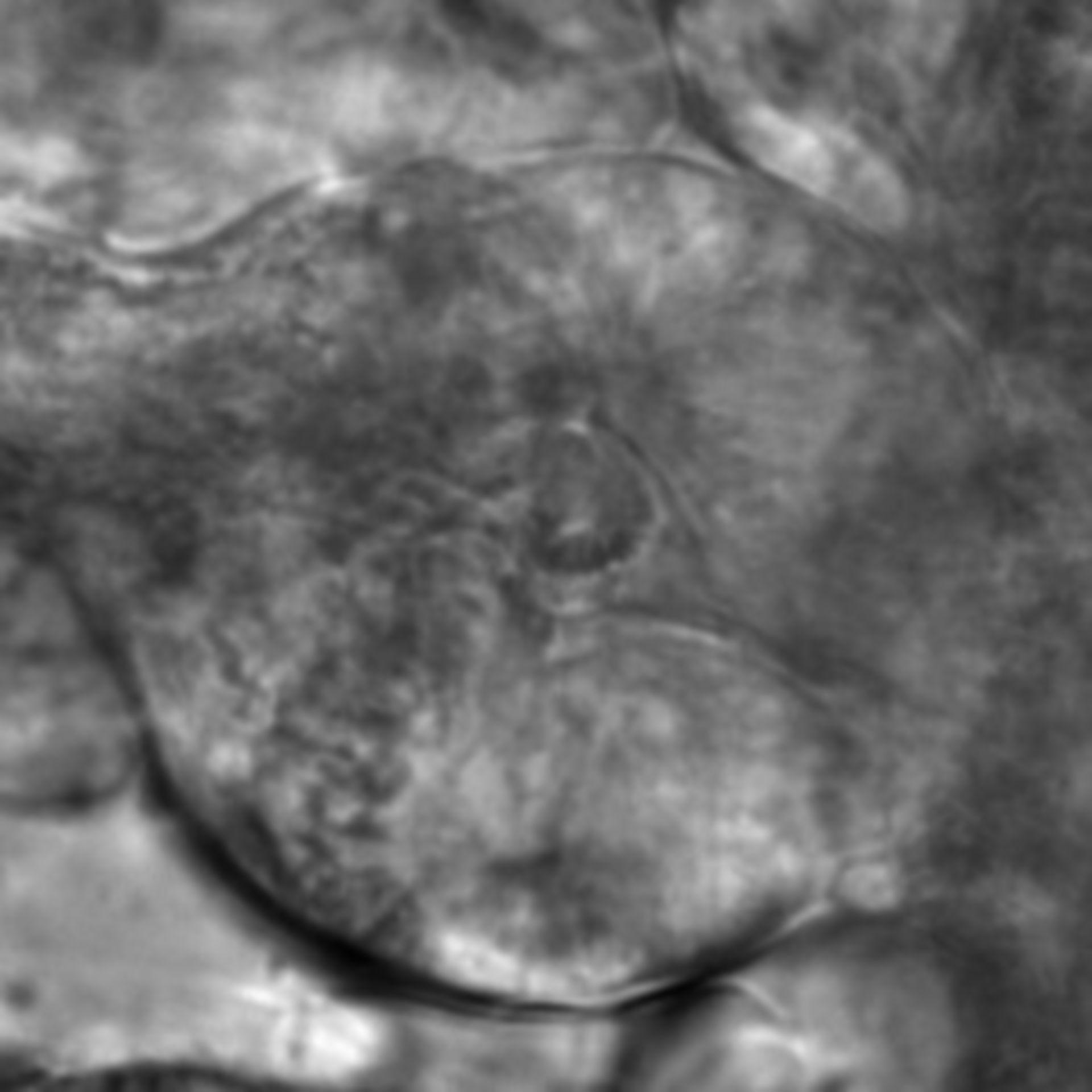 Caenorhabditis elegans - CIL:2840