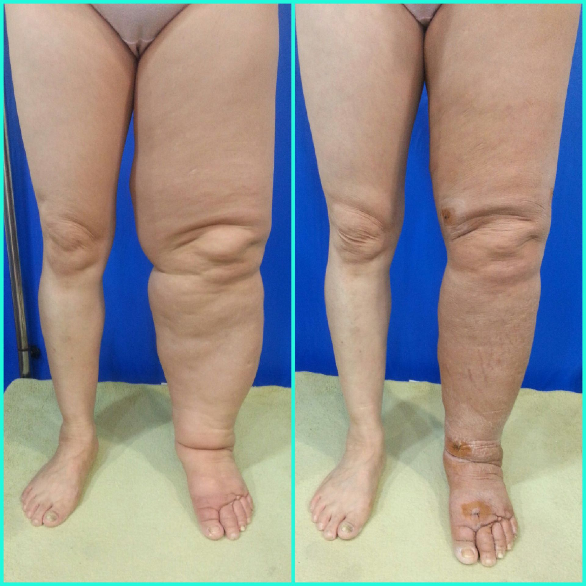 Lymphedema left leg Jung S J( Yonsei S Hospital) 2