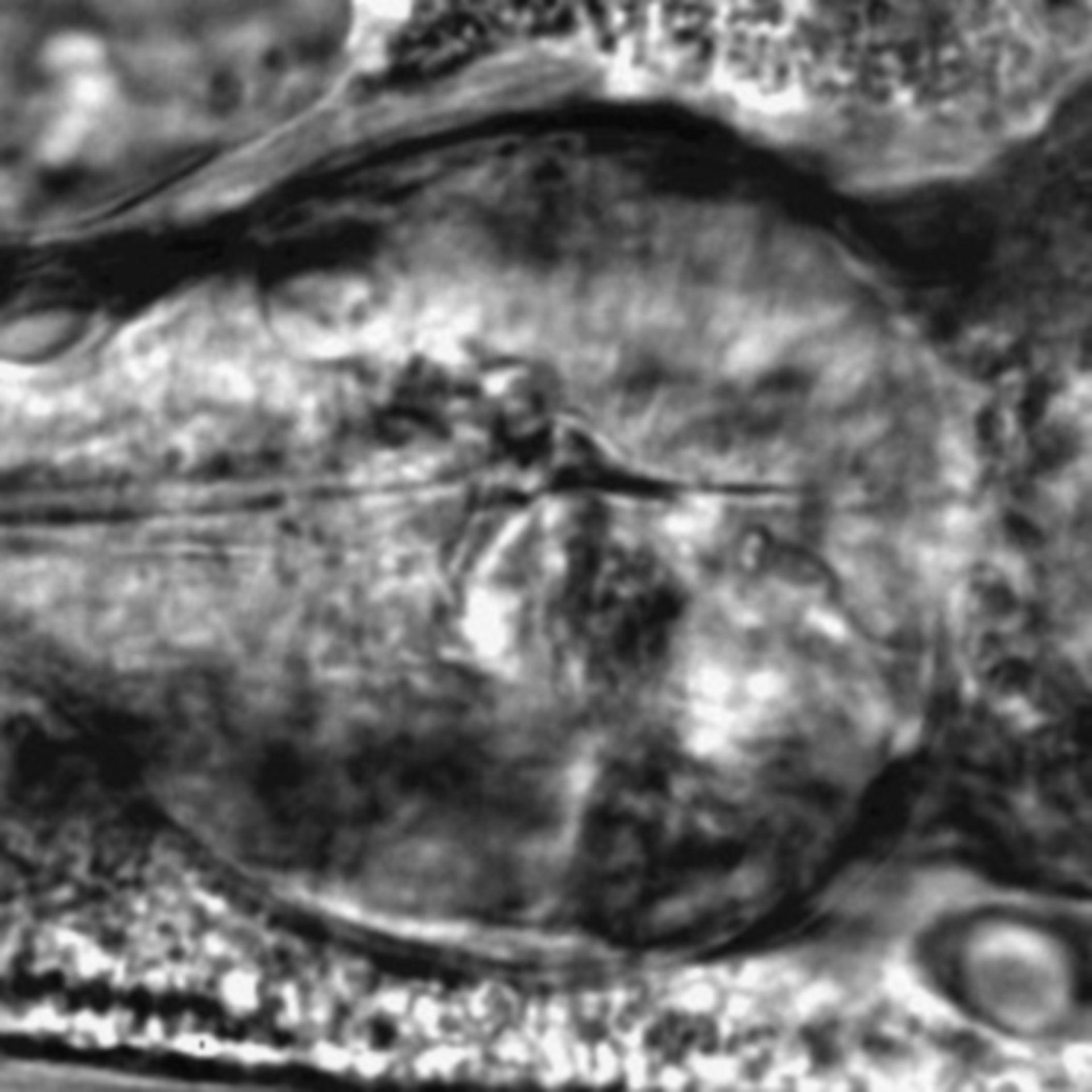 Caenorhabditis elegans - CIL:2785