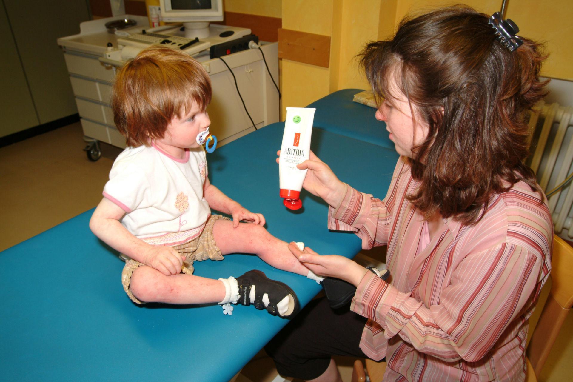 Bambino con neurodermite riceve il trattamento