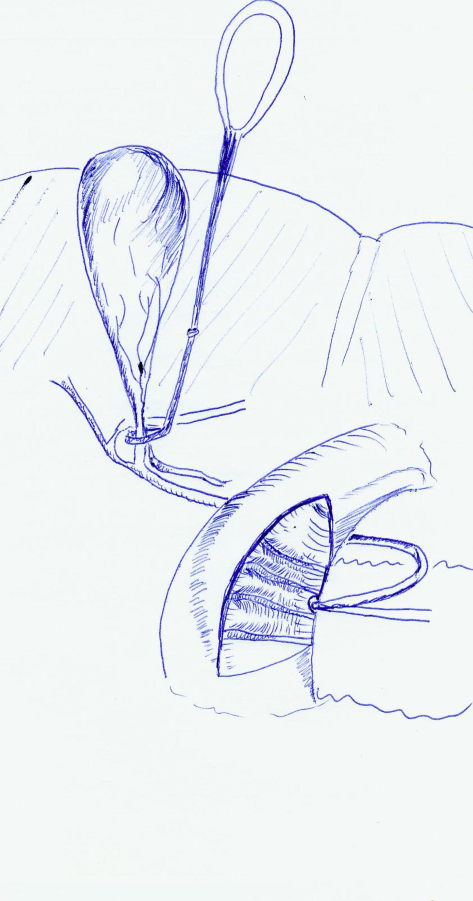 Sito del dotto biliare