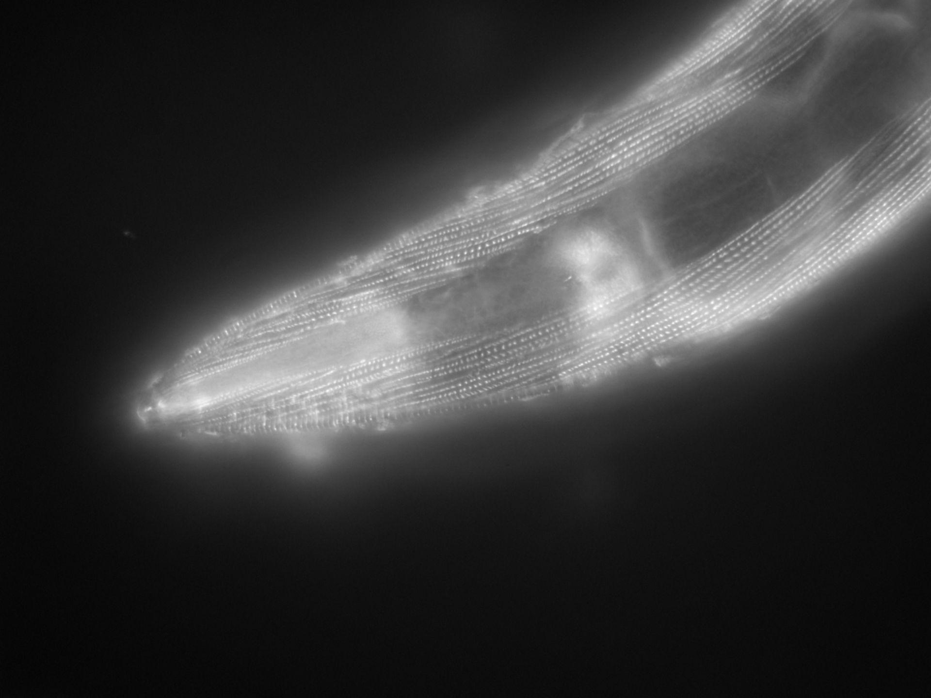 Caenorhabditis elegans (filamento di actina) - CIL:1196
