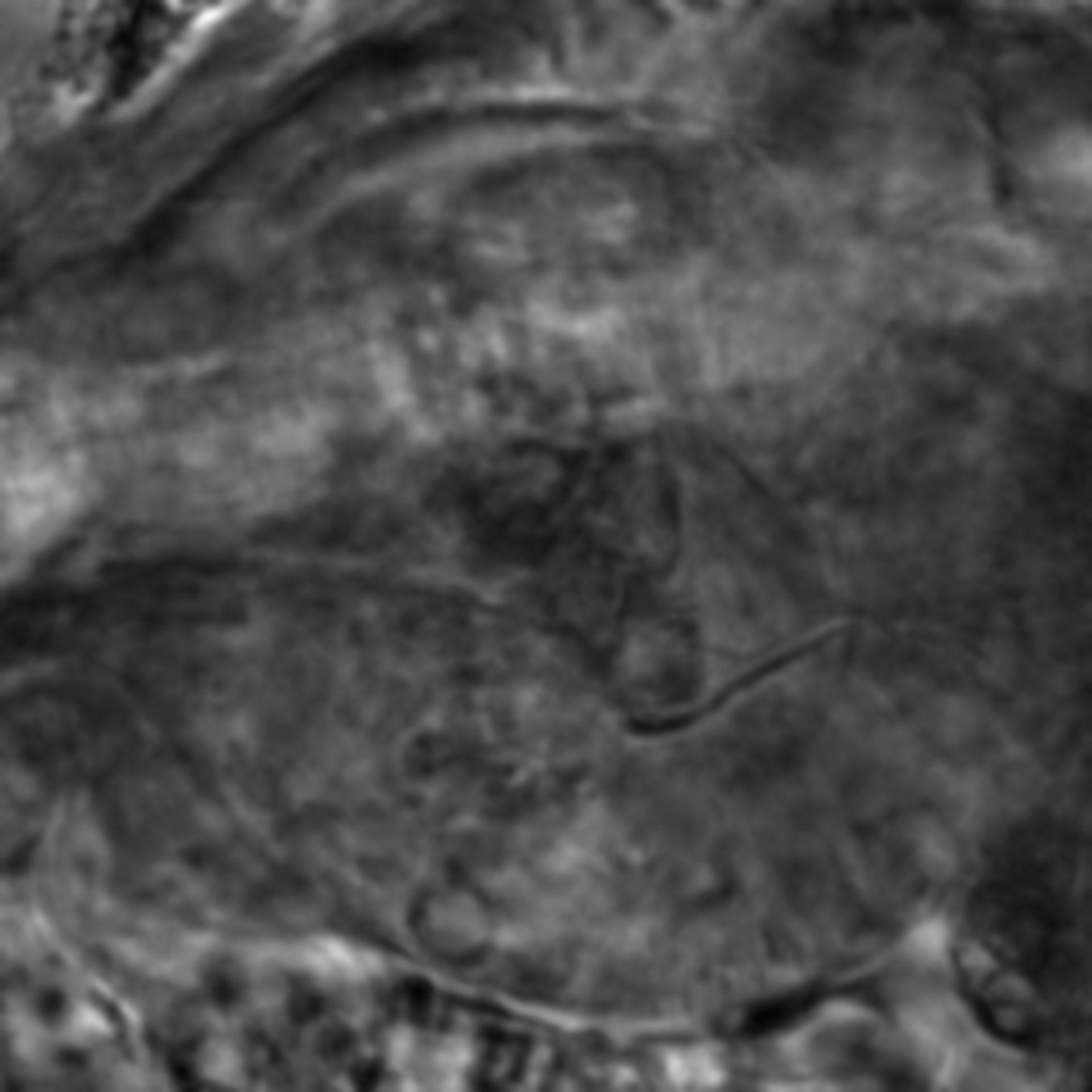 Caenorhabditis elegans - CIL:2662