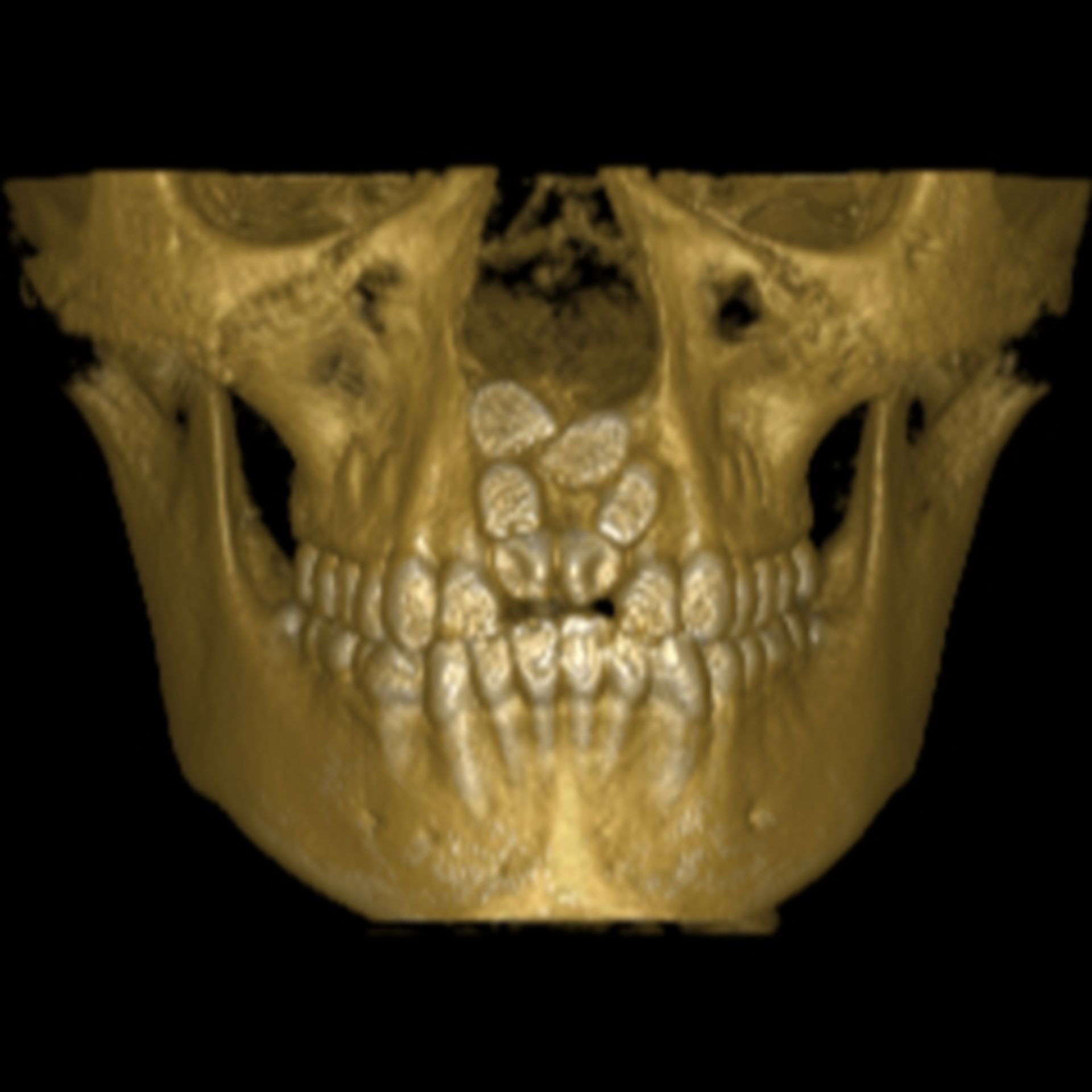 DVT with supernumerary teeth