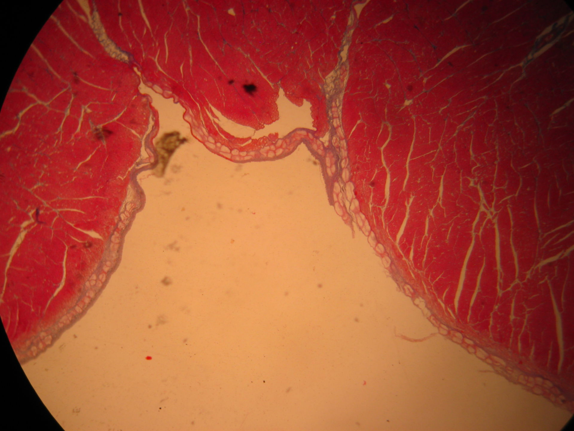 Lumen muscolo cardiaco - maiale