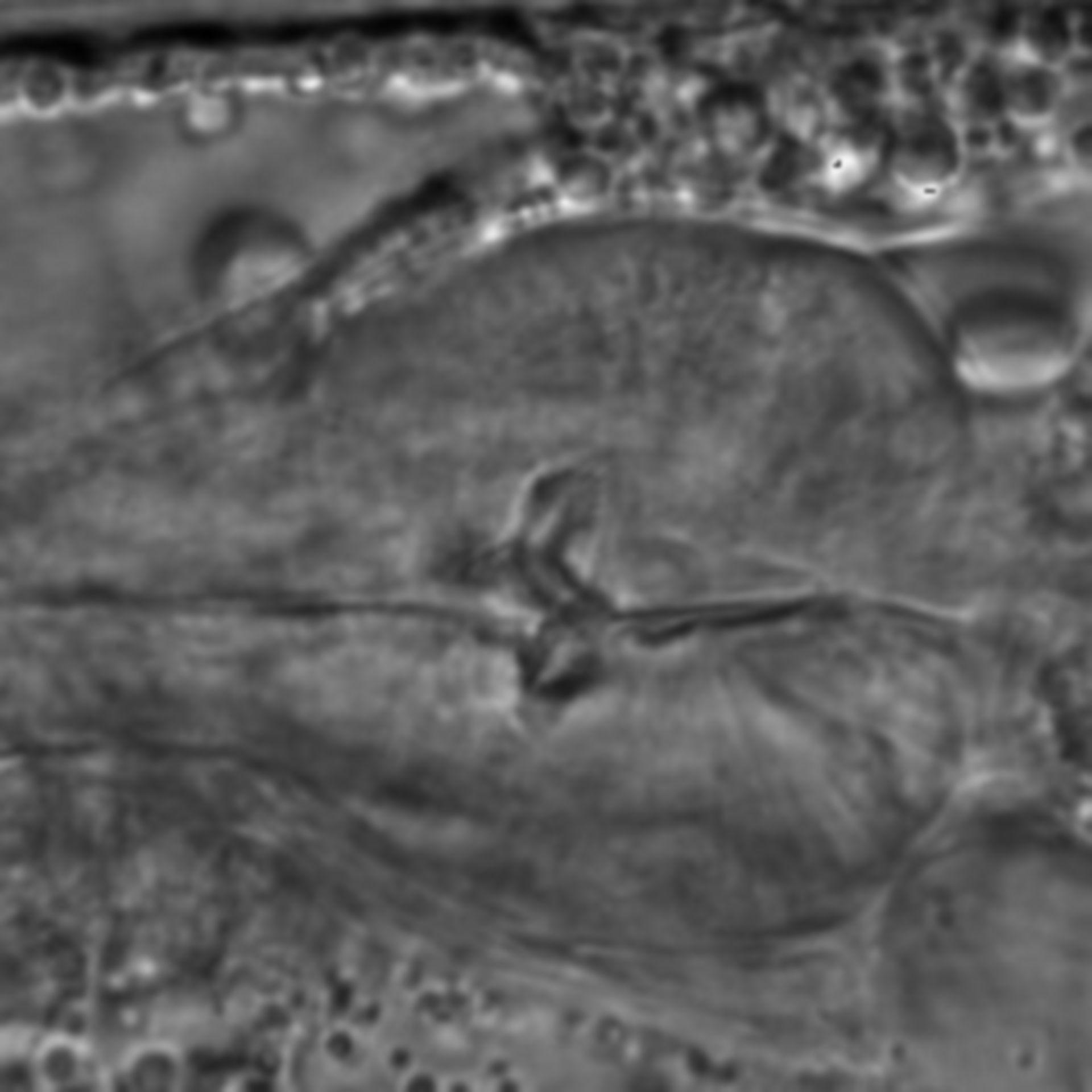 Caenorhabditis elegans - CIL:1732