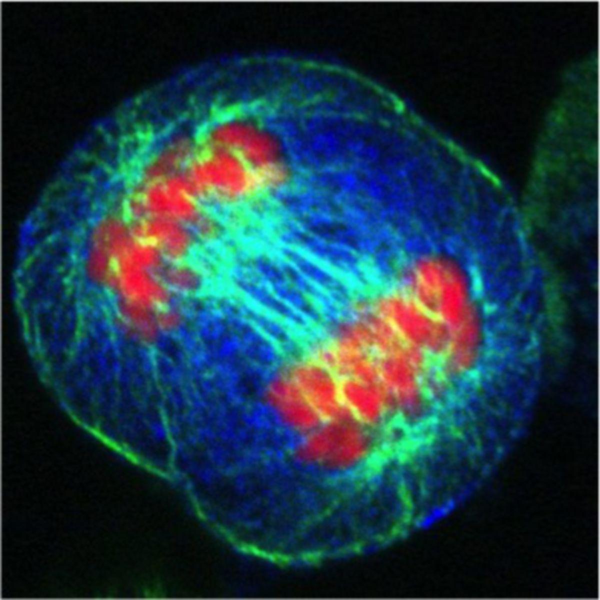 HeLa-Zellen in der Anaphase