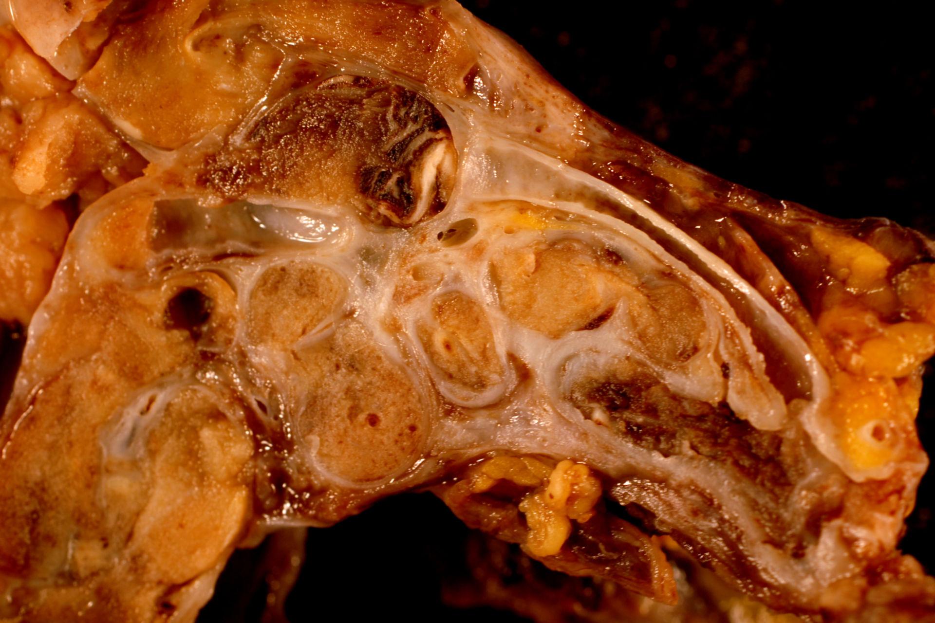 Tumore intra-uterino in paziente di 33 anni