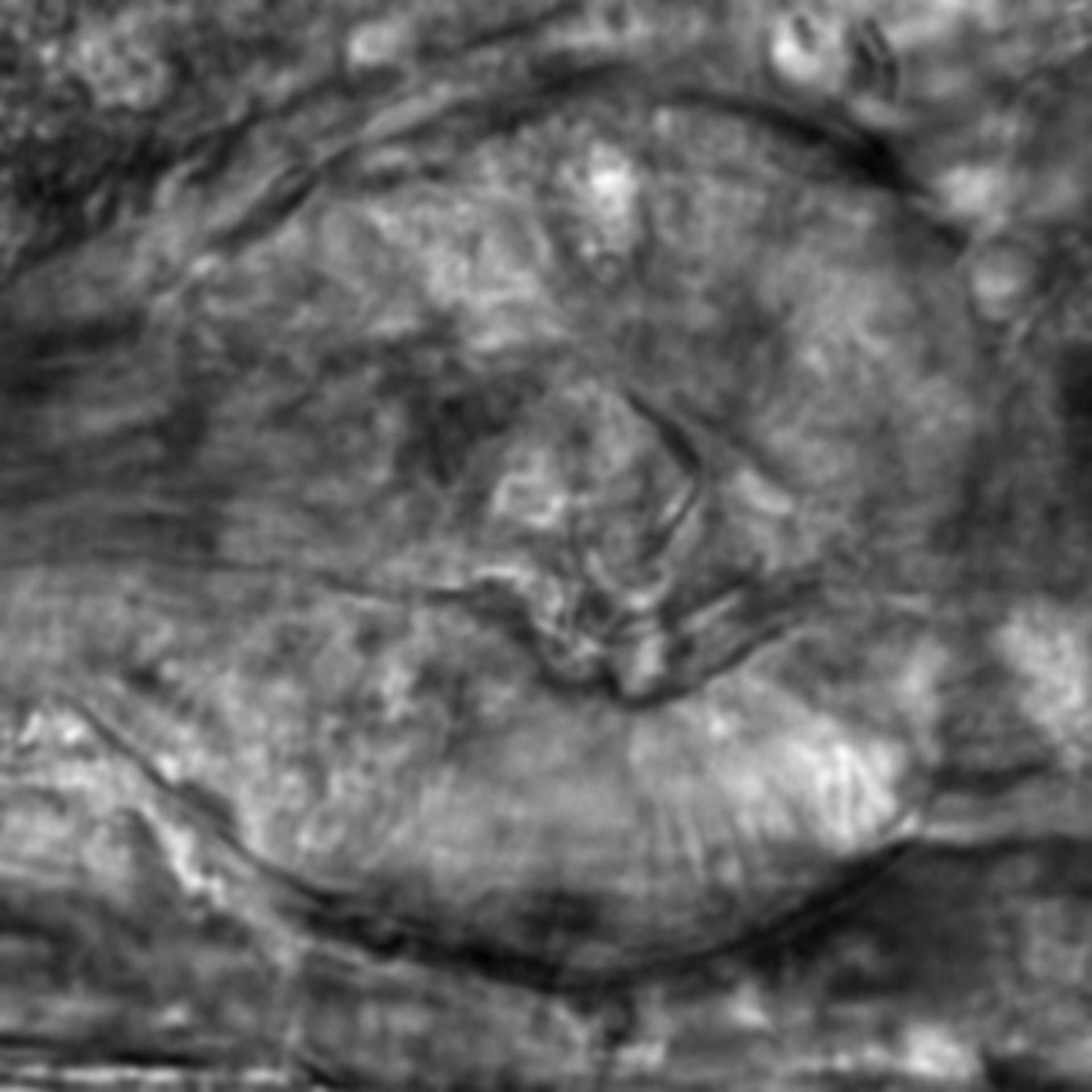 Caenorhabditis elegans - CIL:2844