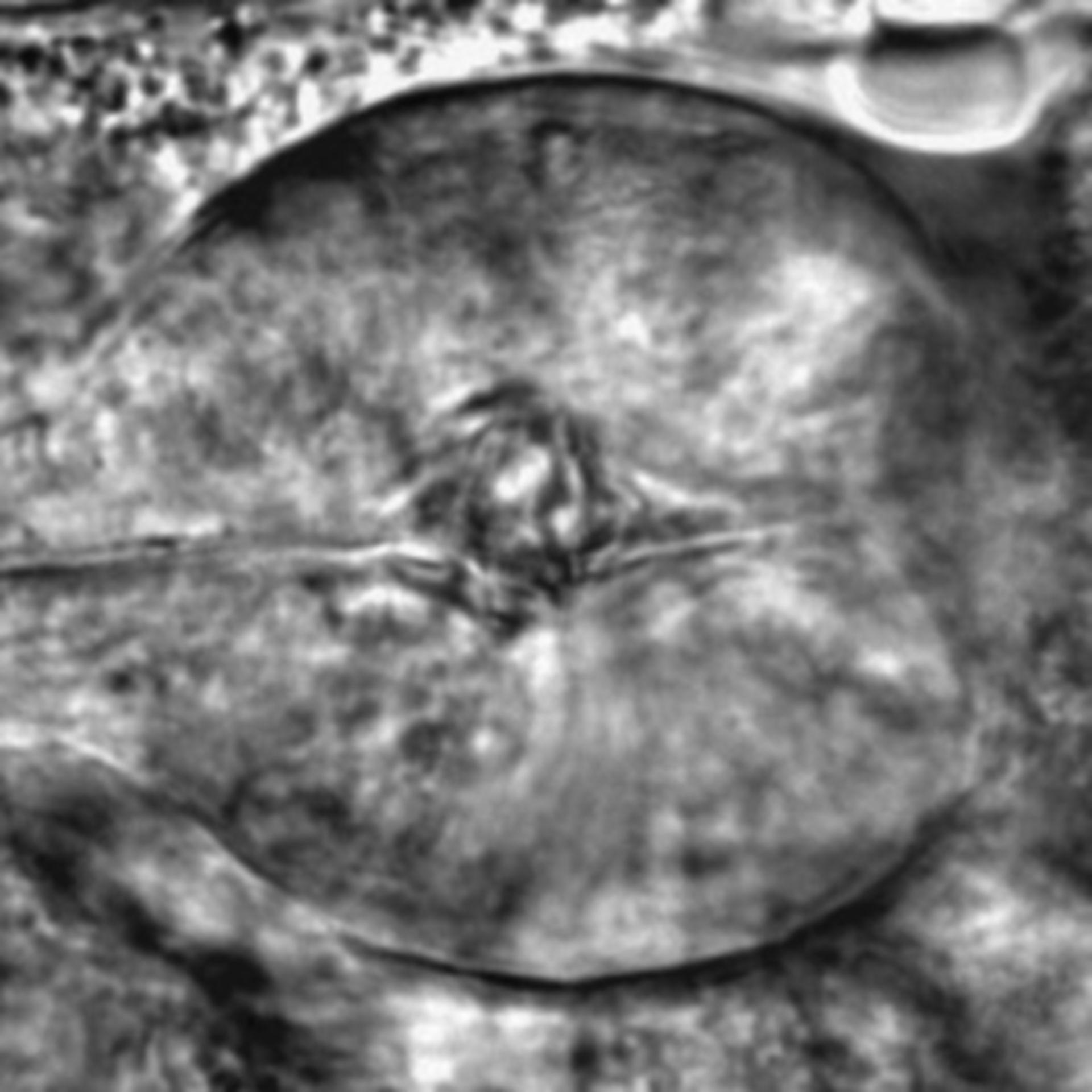 Caenorhabditis elegans - CIL:2773