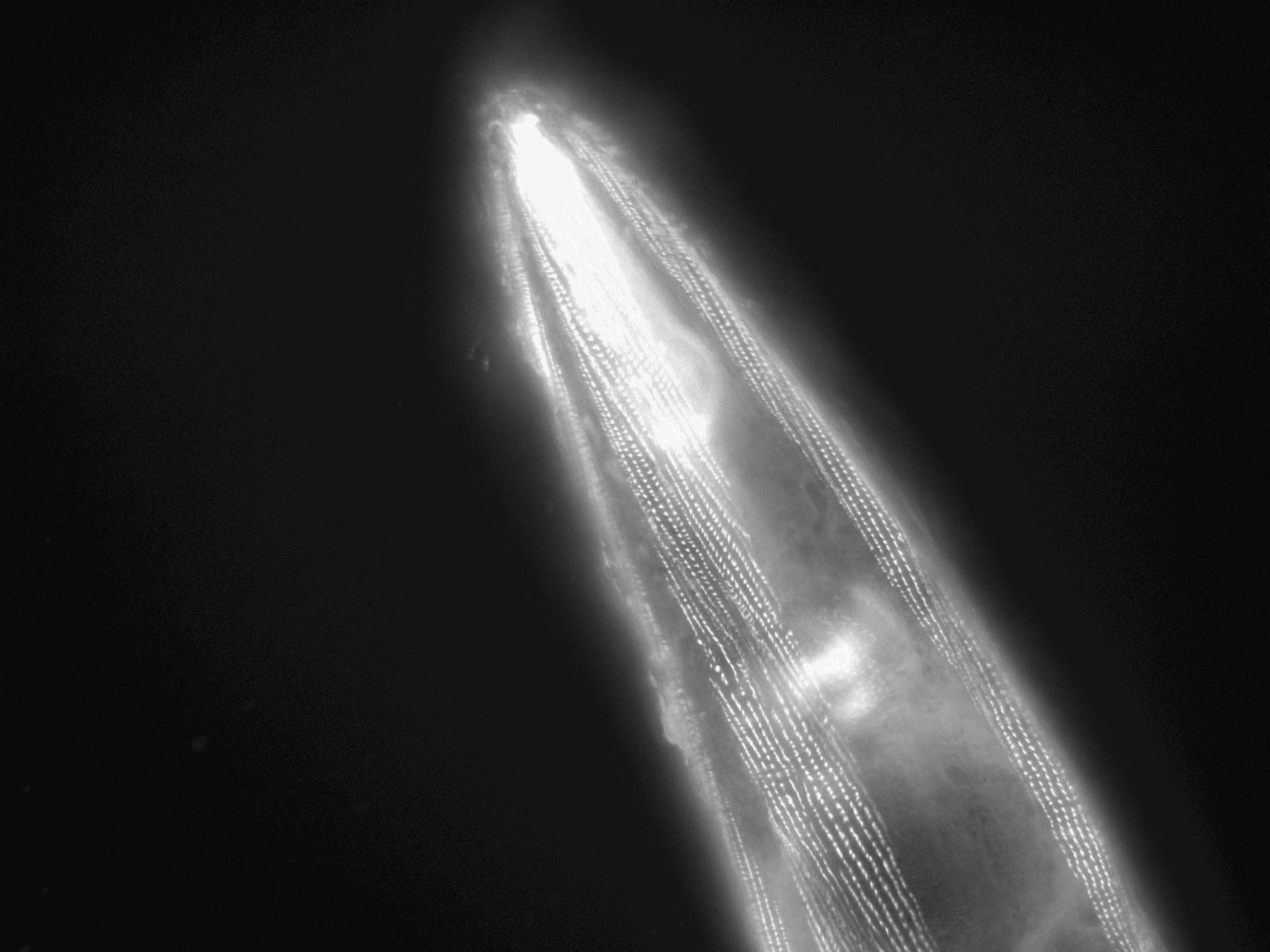 Caenorhabditis elegans (Actin filament) - CIL:1188