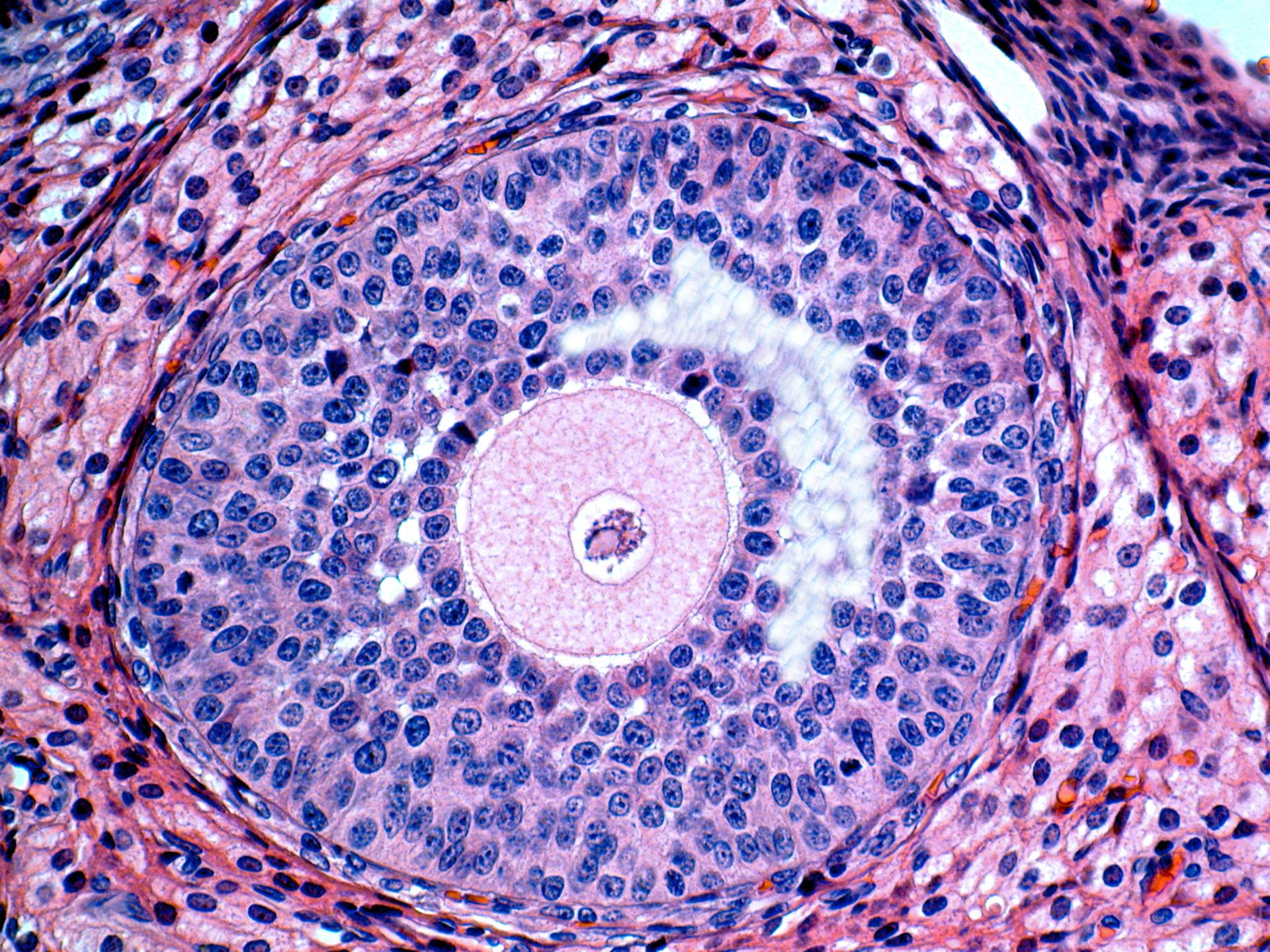 Ovarialfollikel