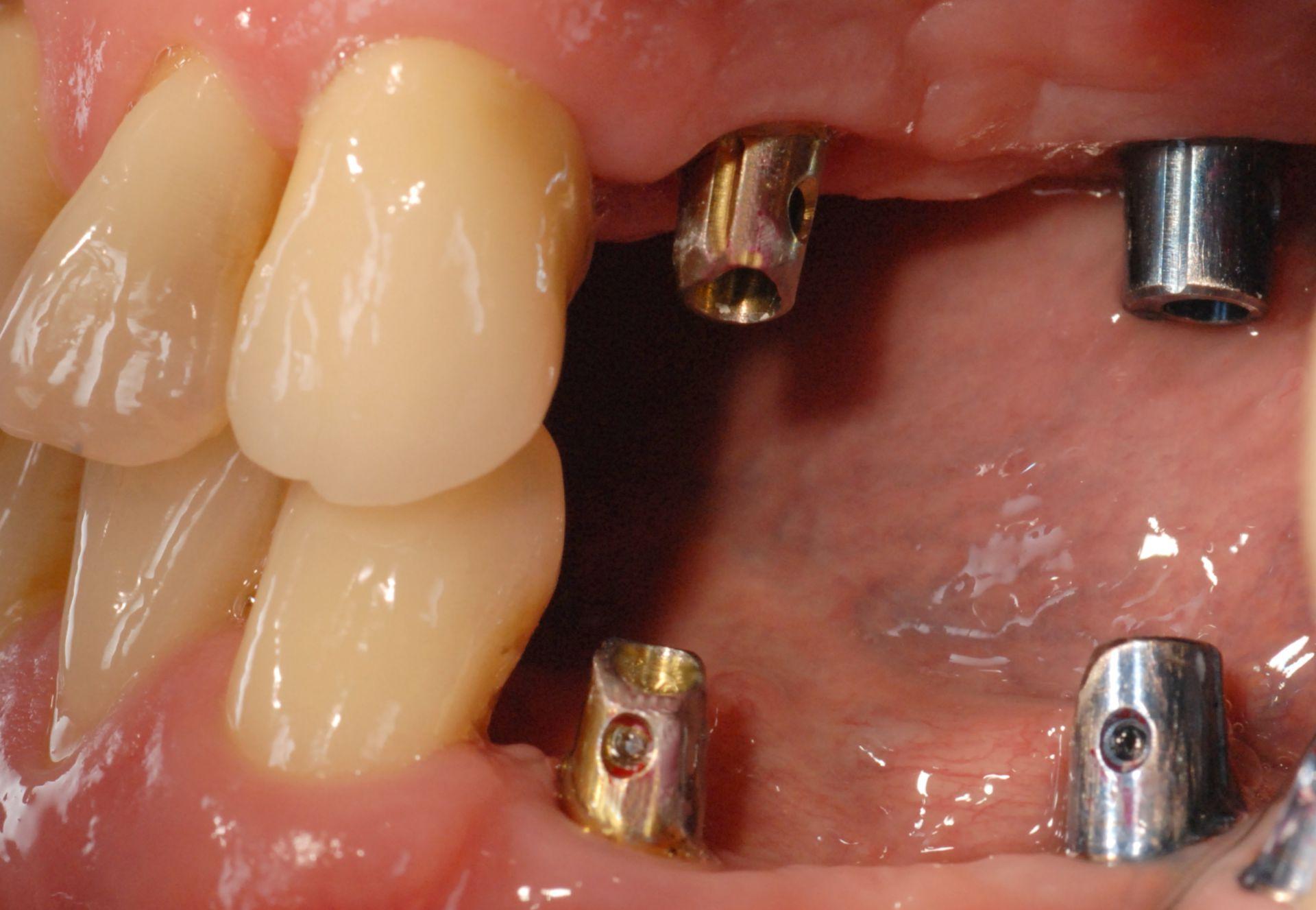 Eingesetzte Implantate