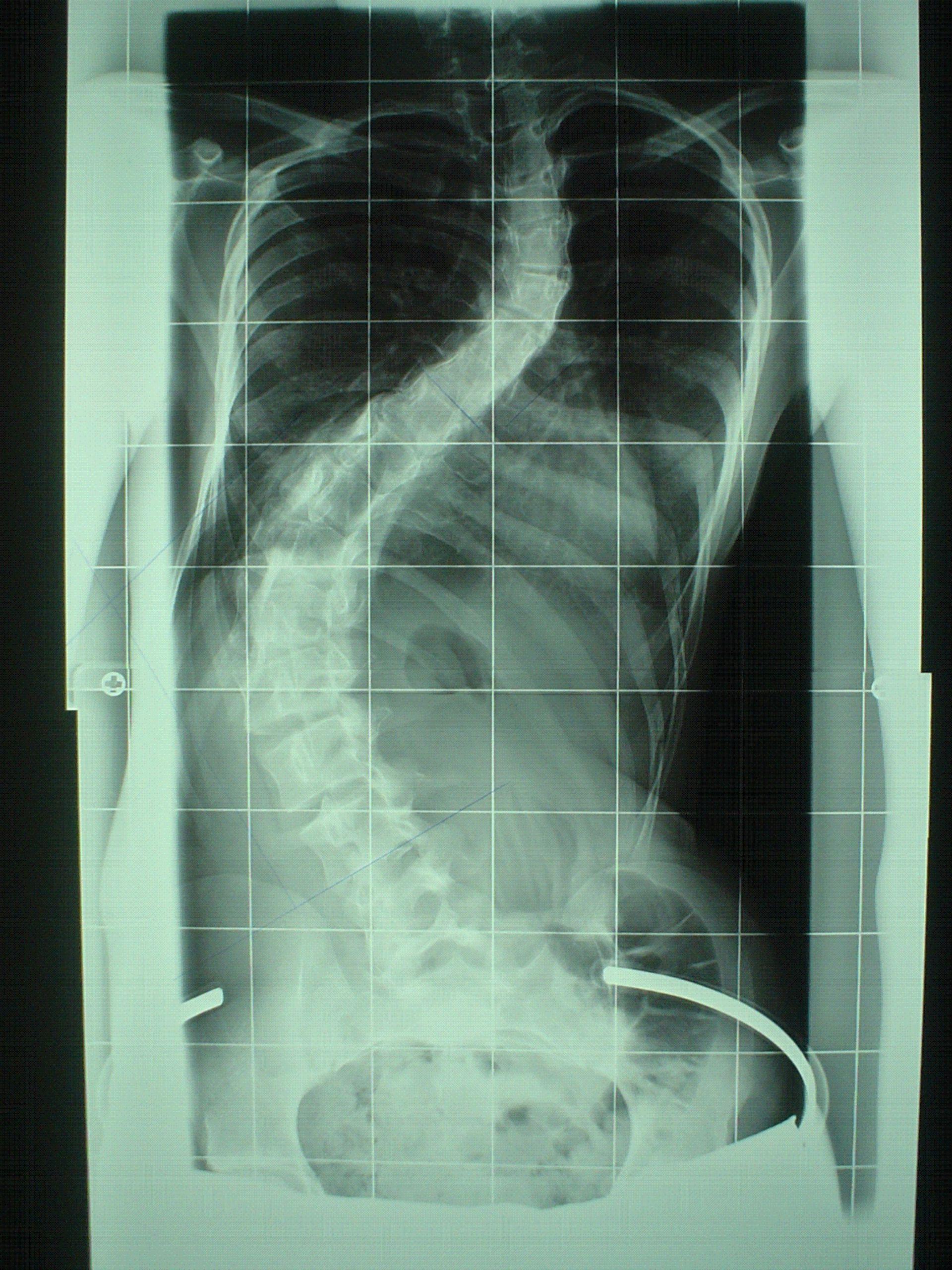Juvenile Skoliose - Röntgen-Nativaufnahme