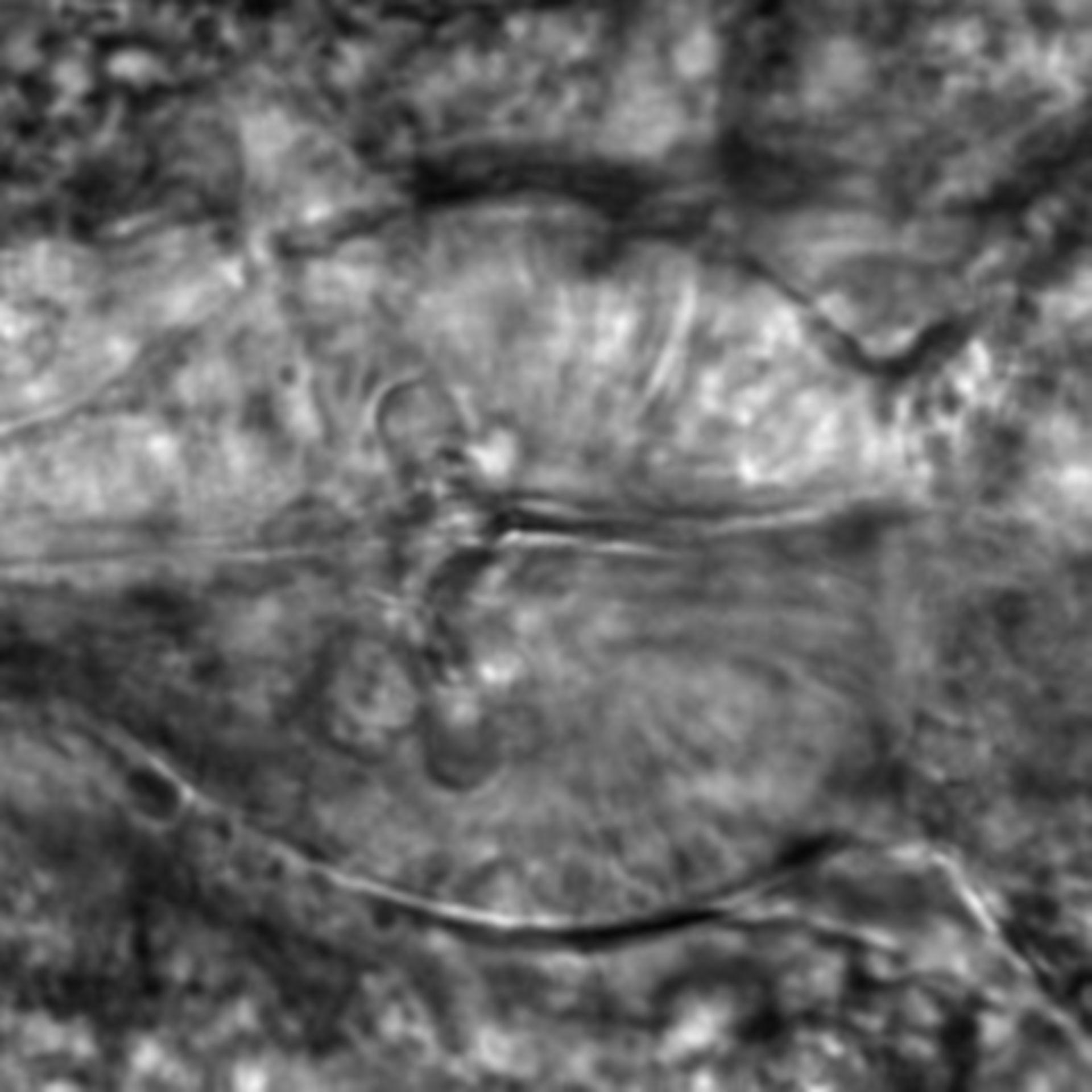 Caenorhabditis elegans - CIL:2184