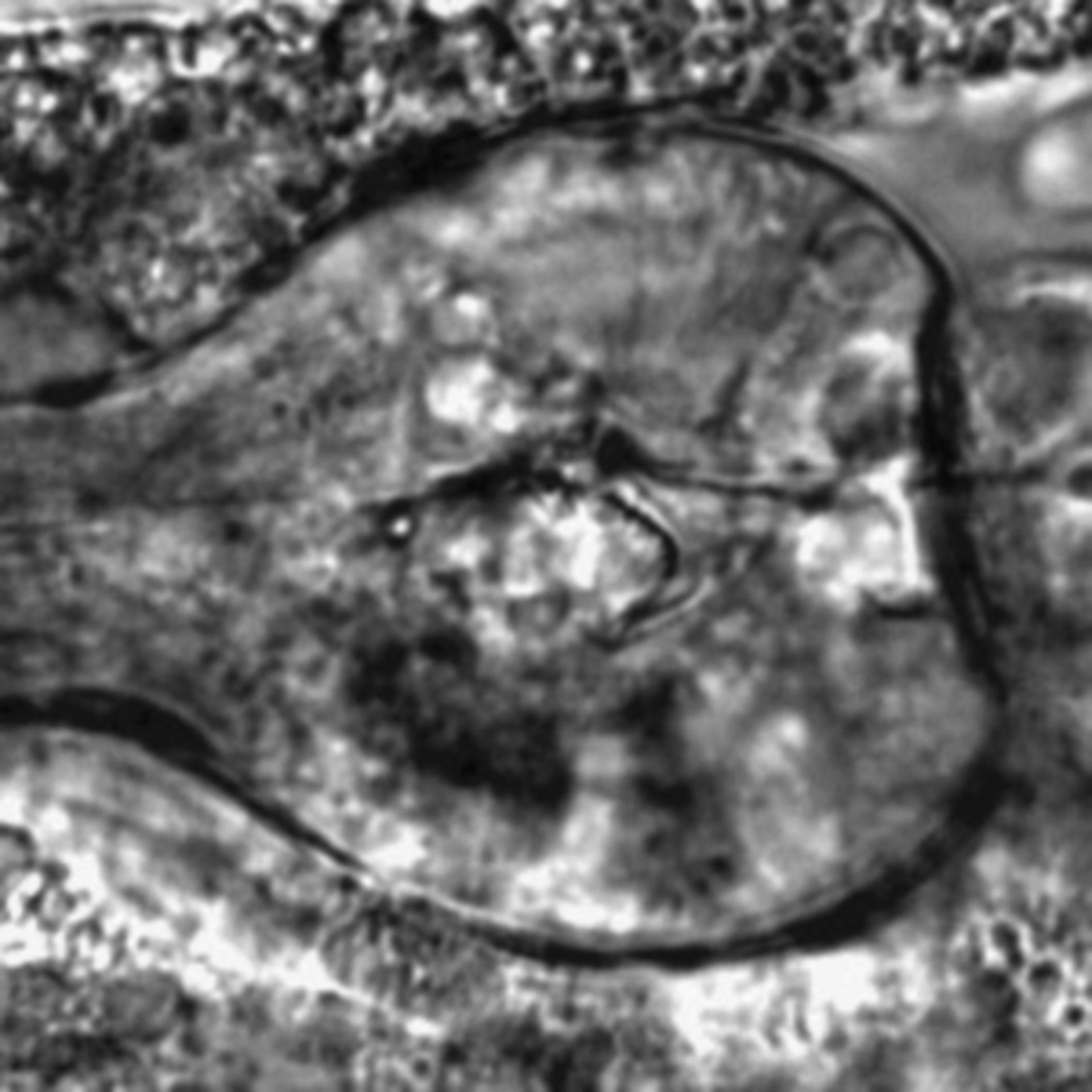 Caenorhabditis elegans - CIL:2764