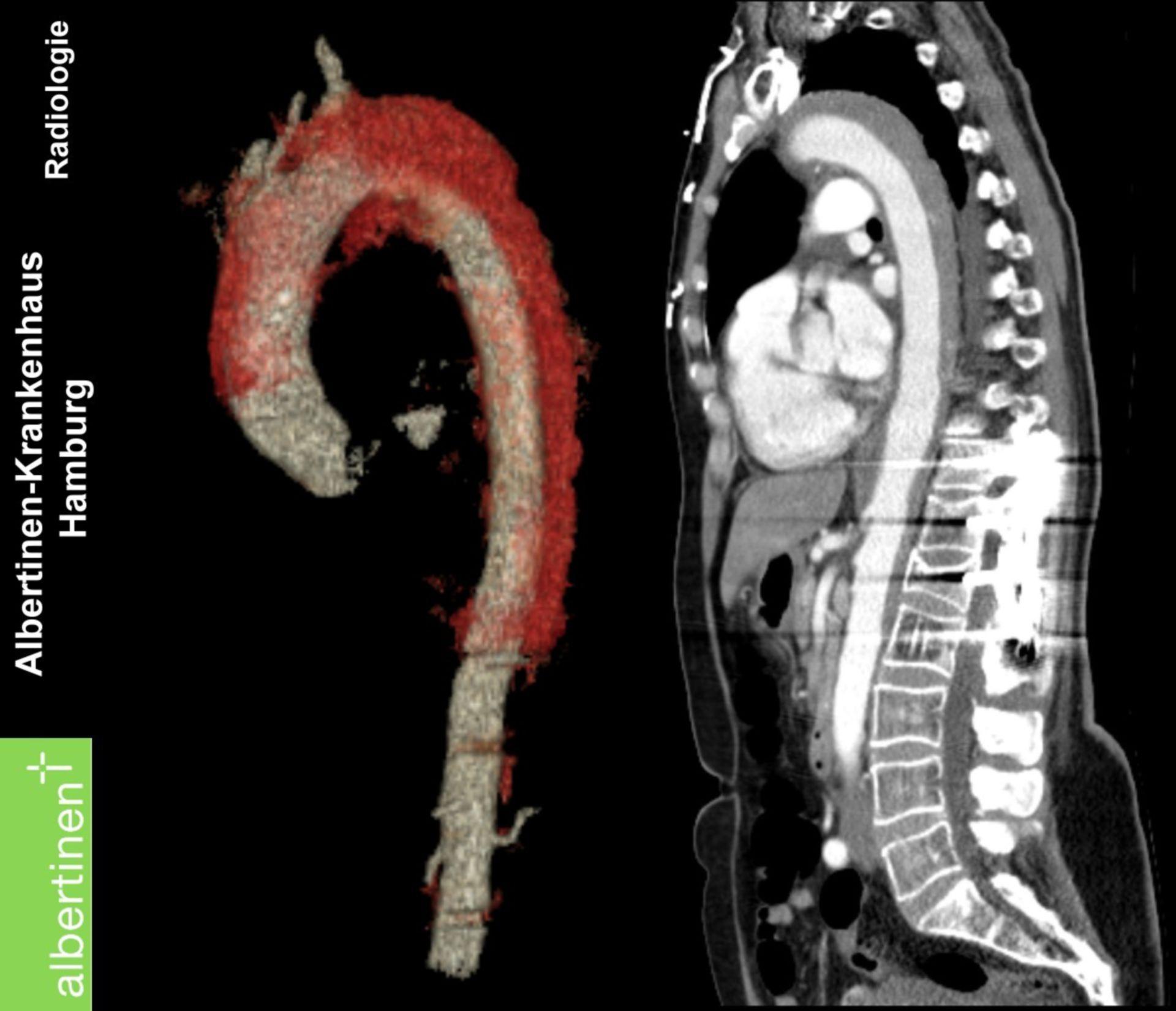 CT Thorakales Aorten-Aneurysma längs mit 3D