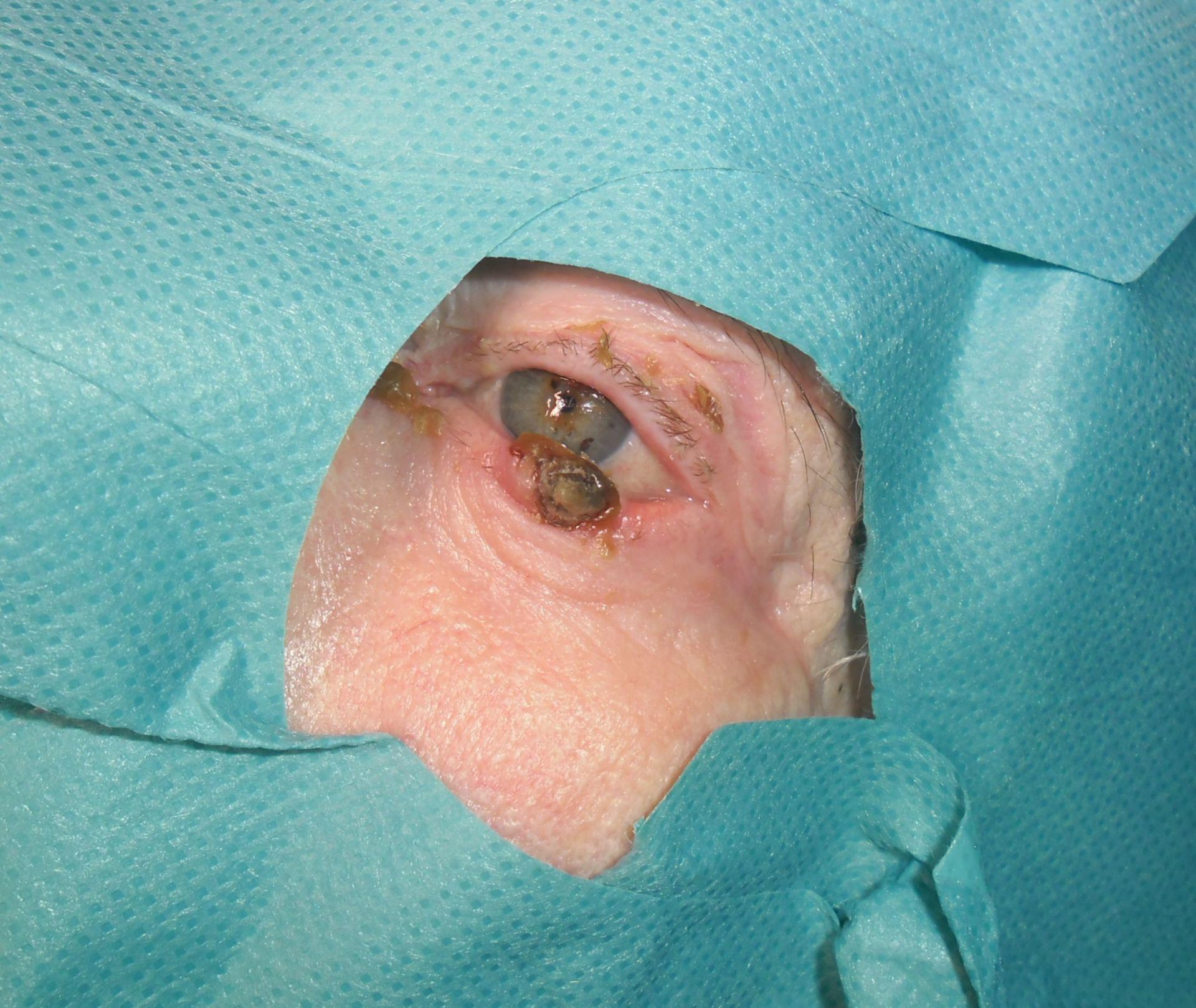 Tumore della palpebra