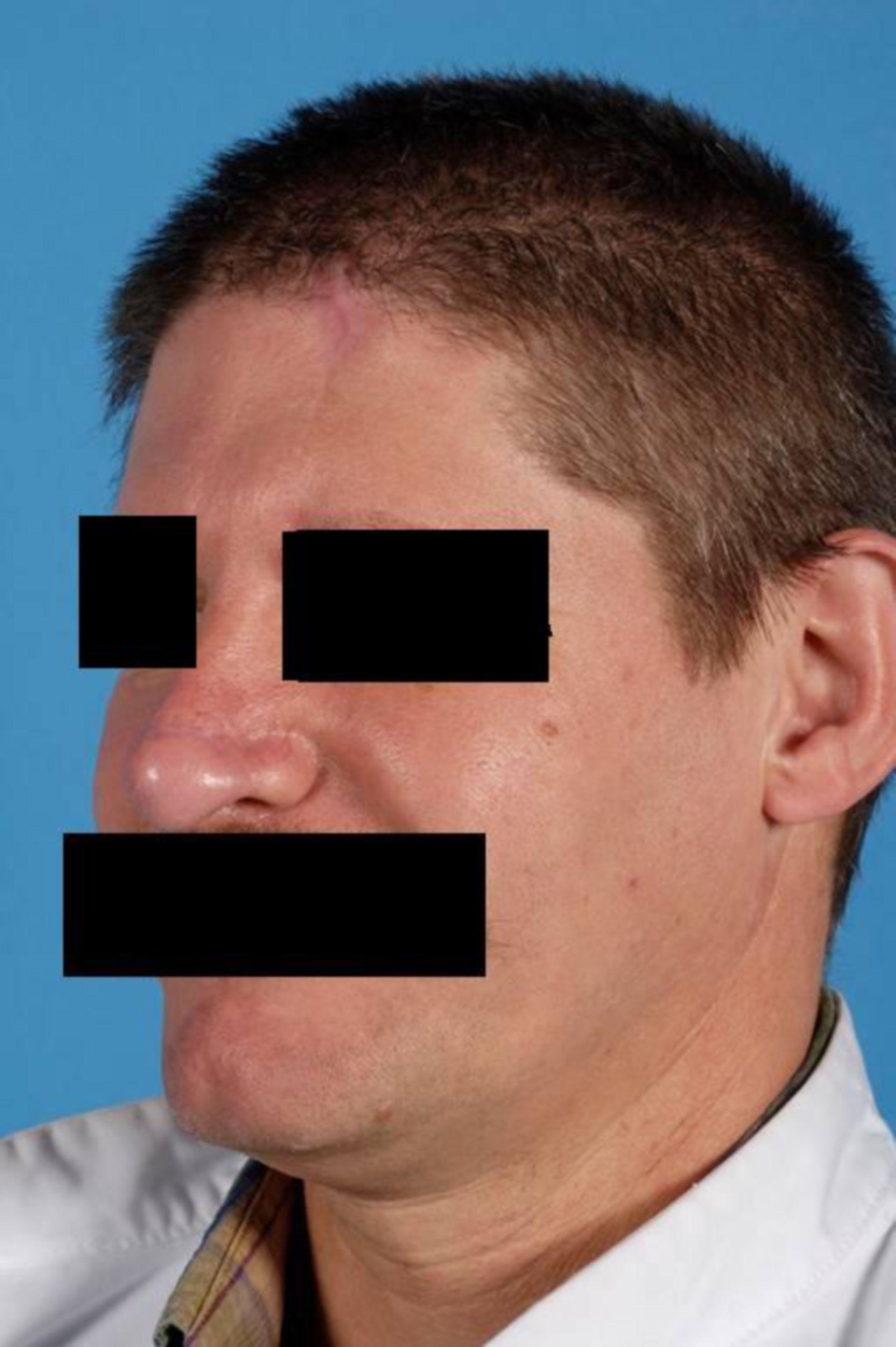 Nasal reconstruction using a paramedian forehead flap (9)