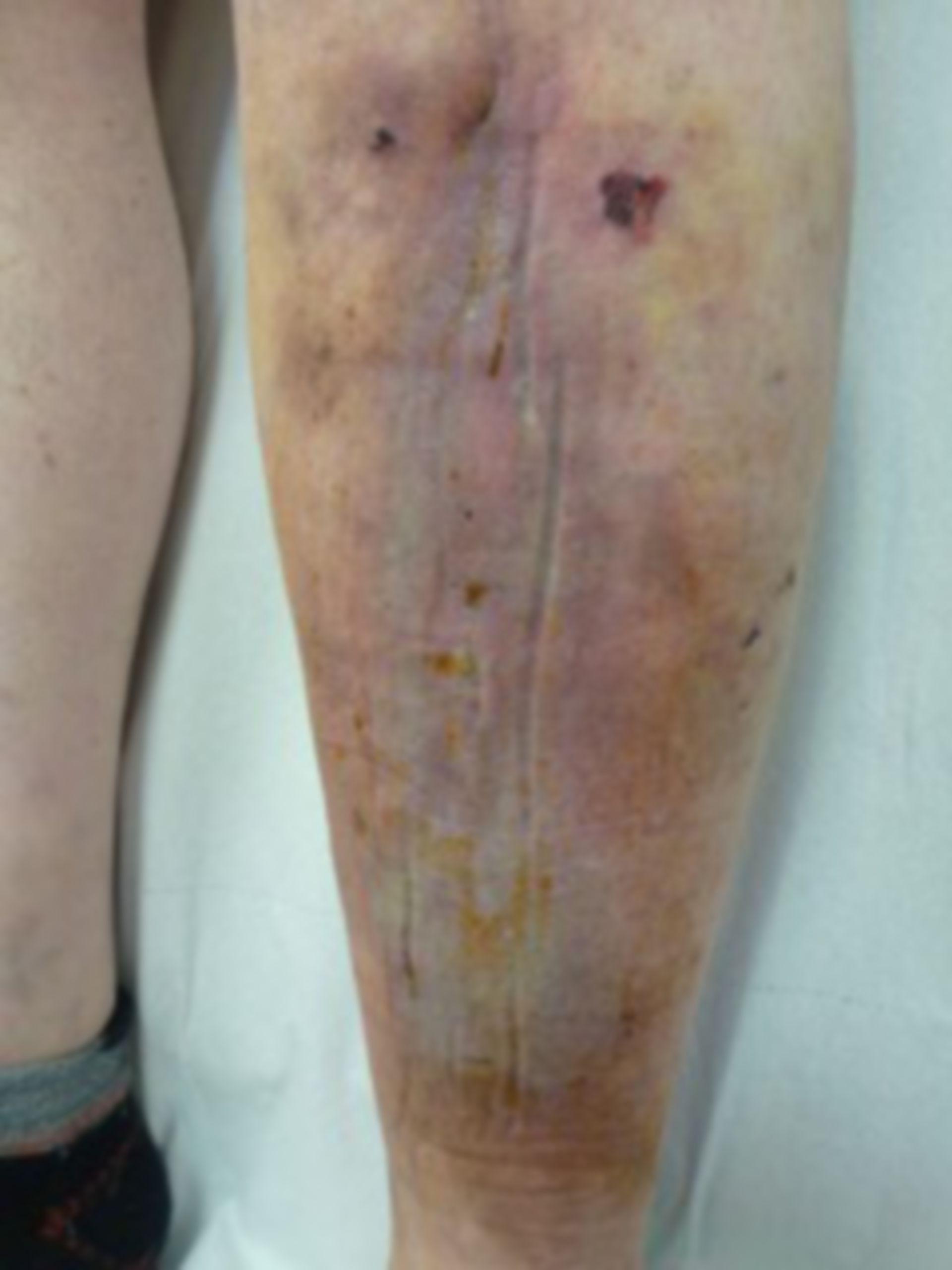 Úlcera de la pierna - abierta por 20 años: día 9 después de la operación (14)