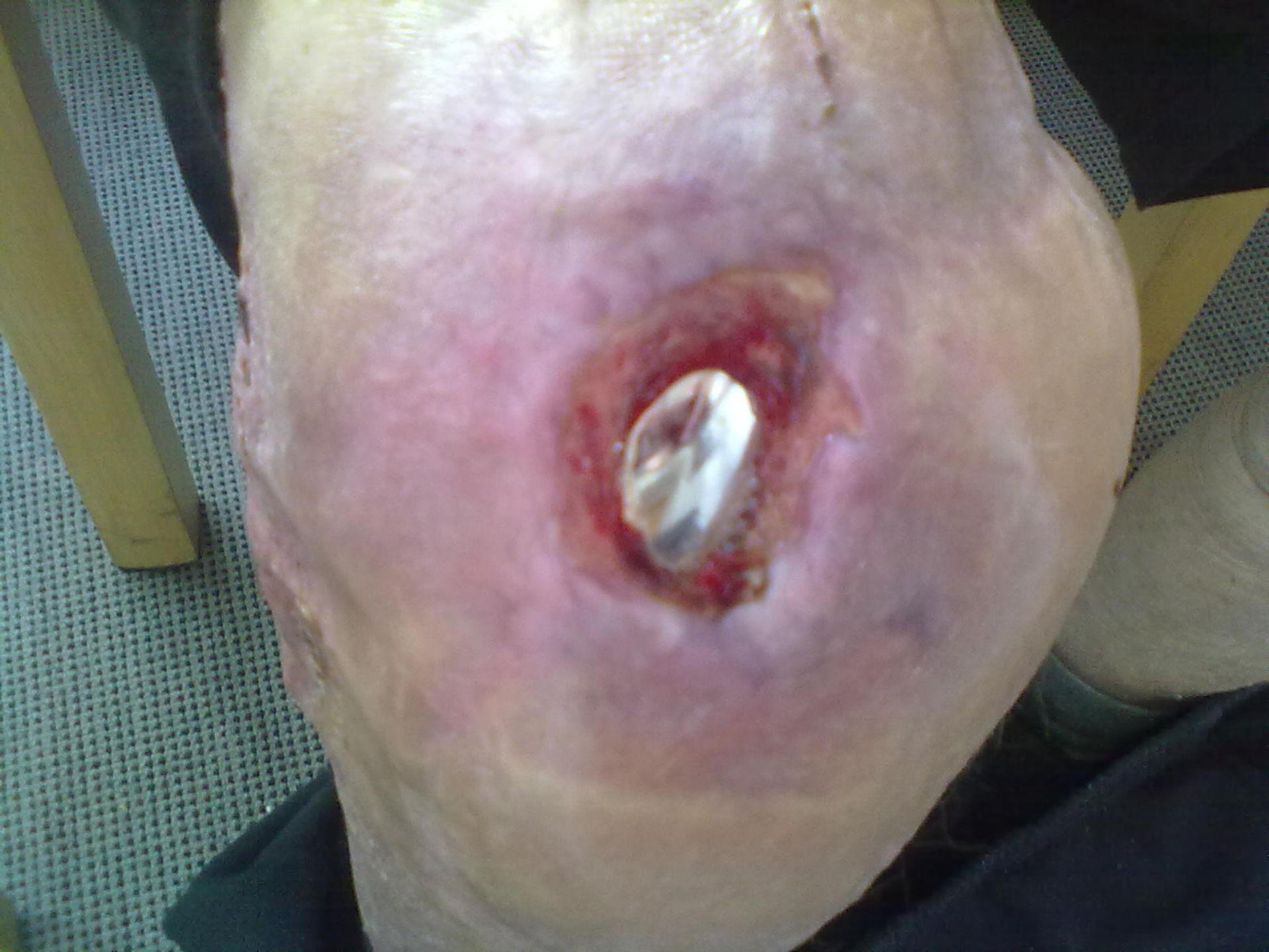 Knee endoprothesis