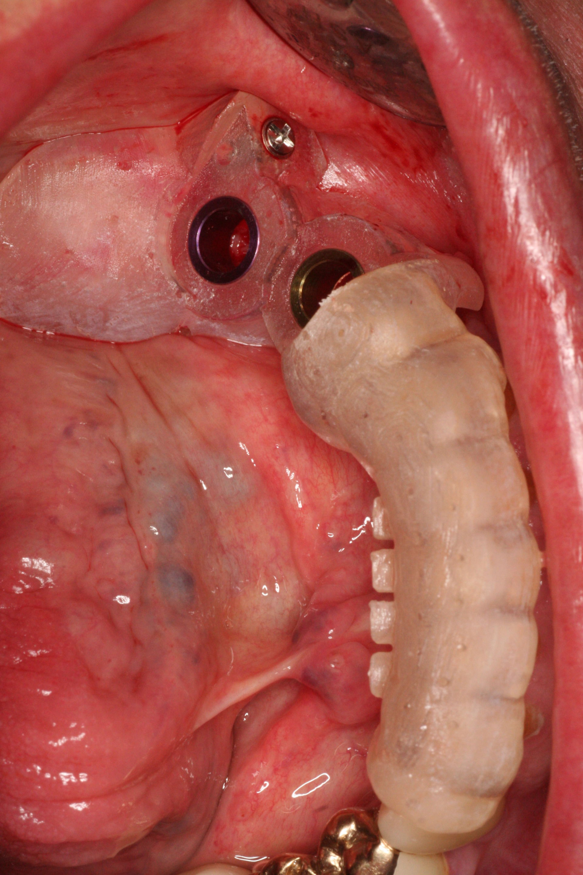 3D Guided Implant Placement