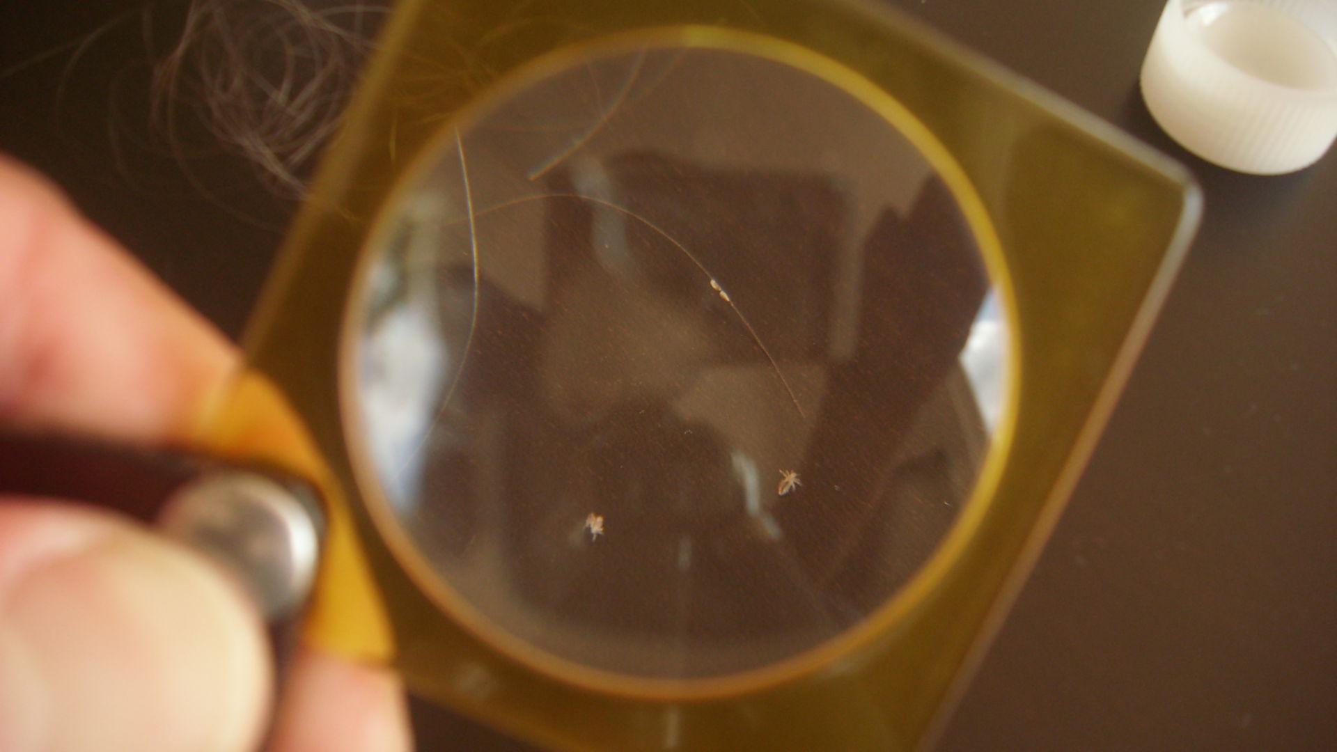 I pidocchi sotto il microscopio