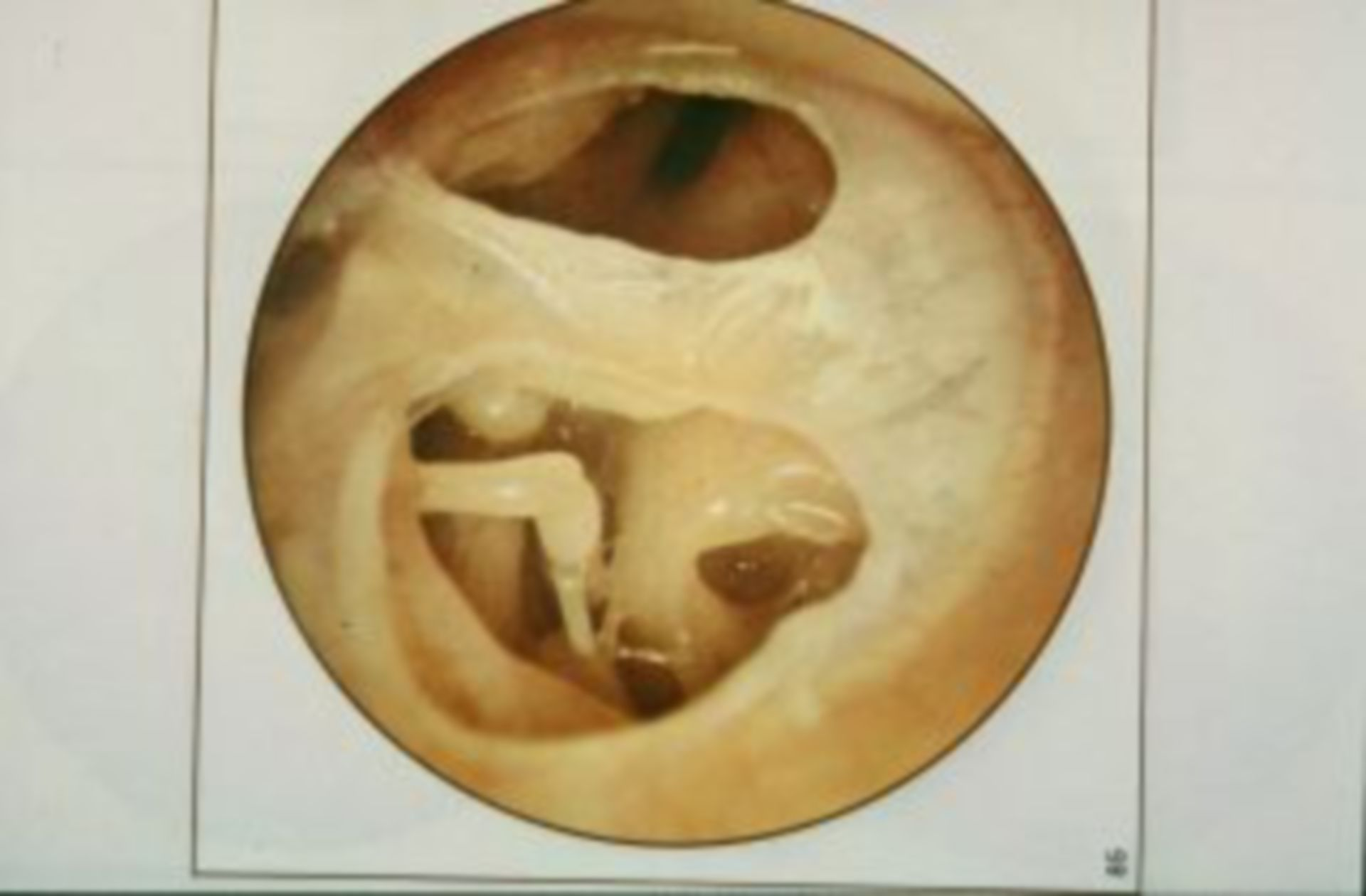 Persisting (double) lesion in the ear drum