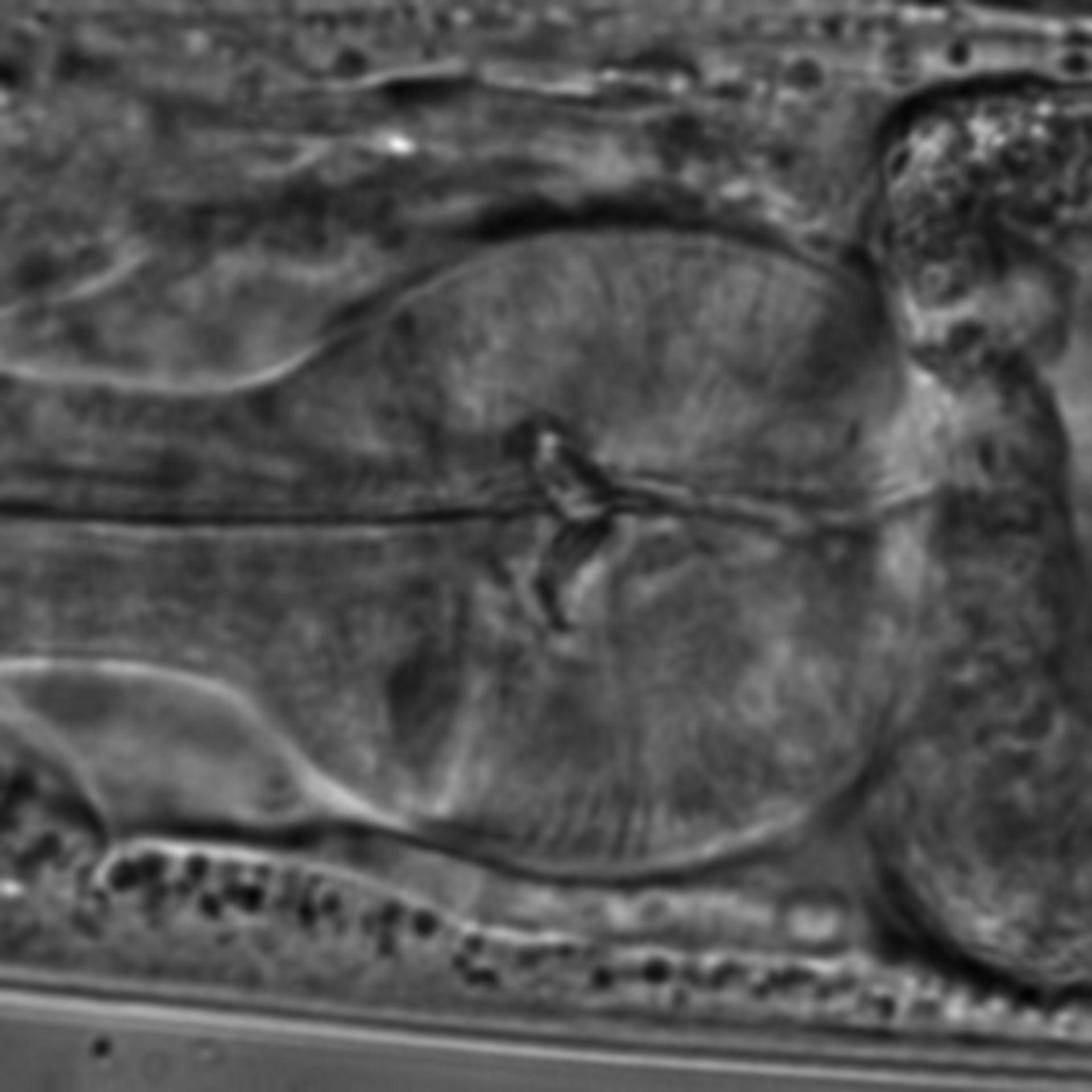 Caenorhabditis elegans - CIL:1598