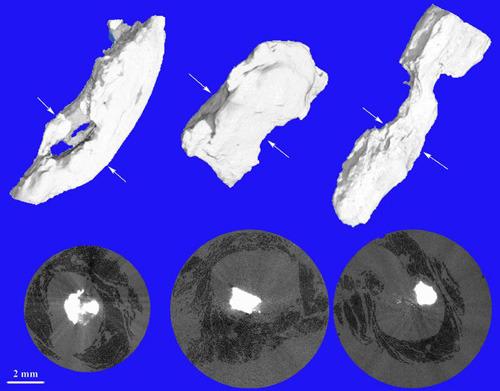 Konventionelle Mikrotomografie mit intensiver Röntgenstrahlung erlaubt die Visualisierung von Verkalkungen (Plaque, weiss) und Muskelgewebe (schwarz). Biomaterials Science Center der Universität Basel