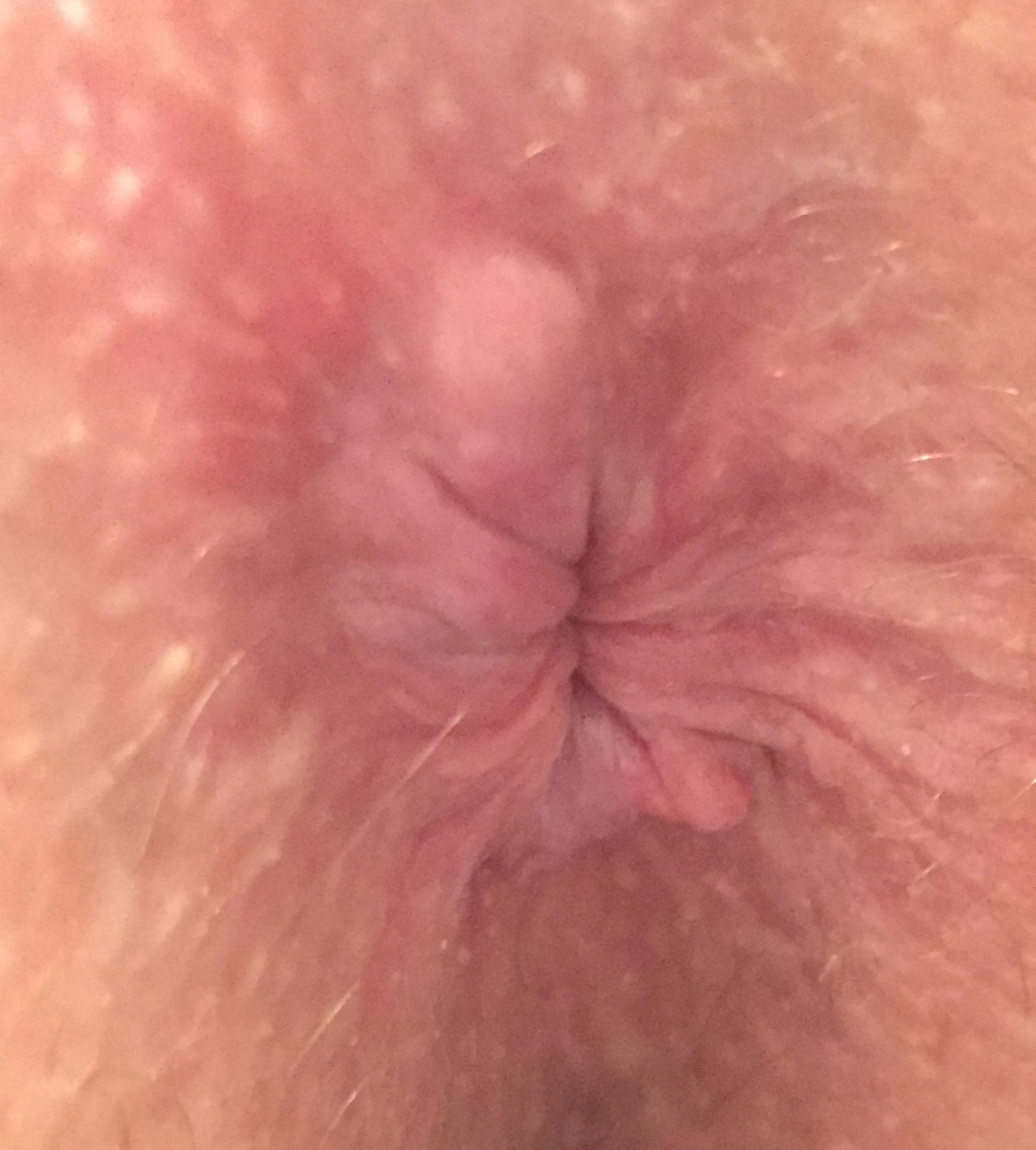 Hemorrhoids or perianal hematoma?