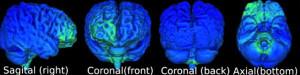 durch Wechselstrom aktivierte elektrische Felder im Gehirn (grün) c B. Sabel