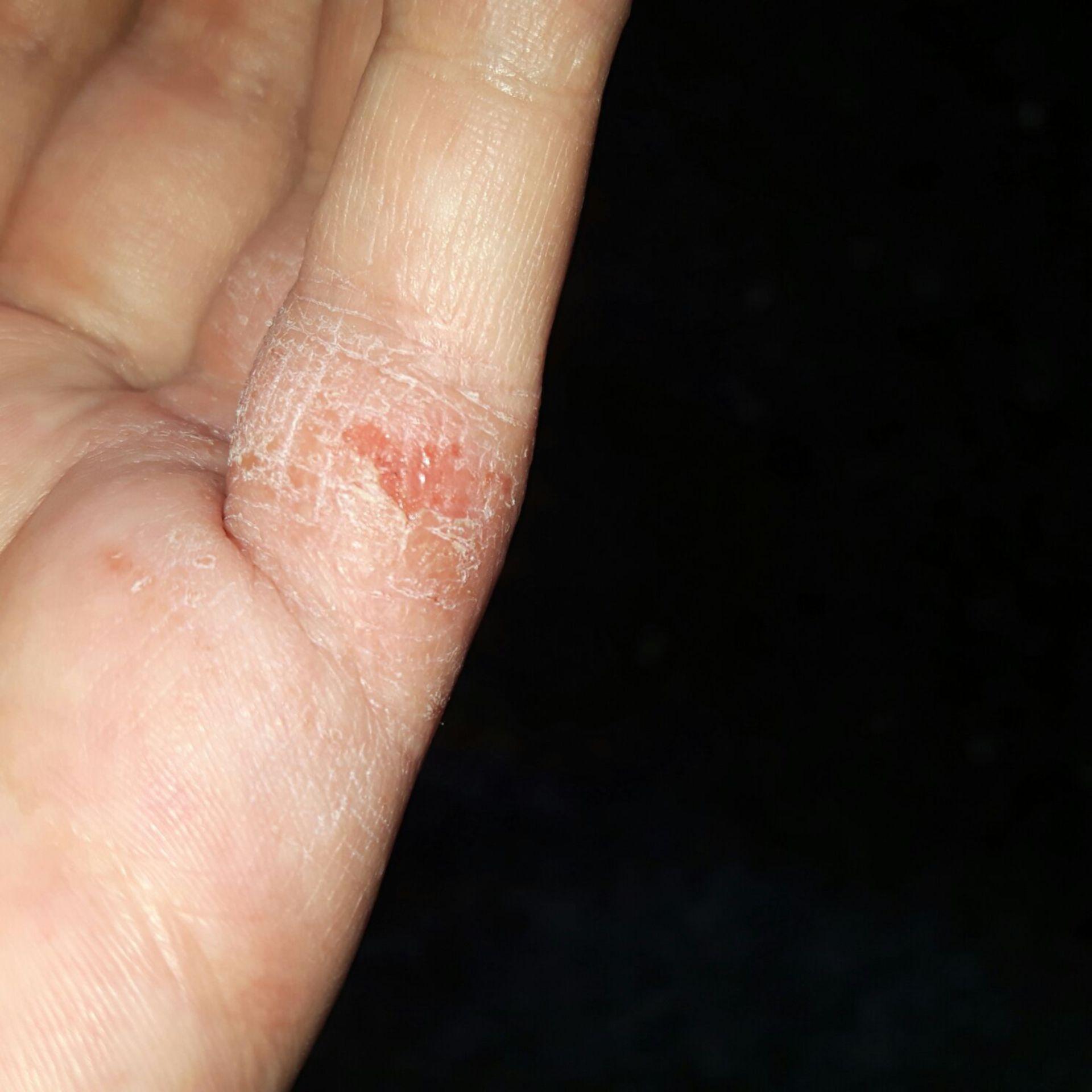 Hautekzem am Finger