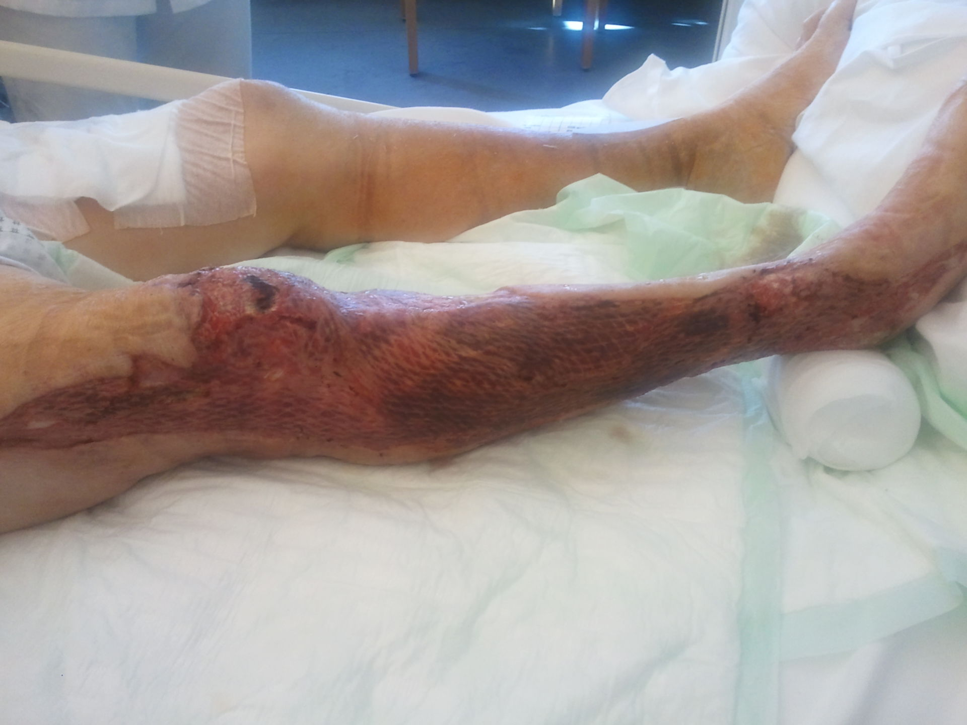 Pioderma gangrenoso - dopo 7 settimane