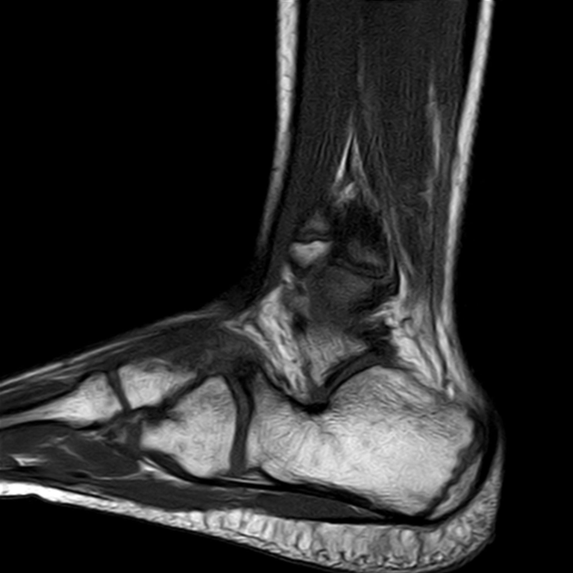 MRT_t1_sag: MRT-Aufnahme eines Fußes von sagittal