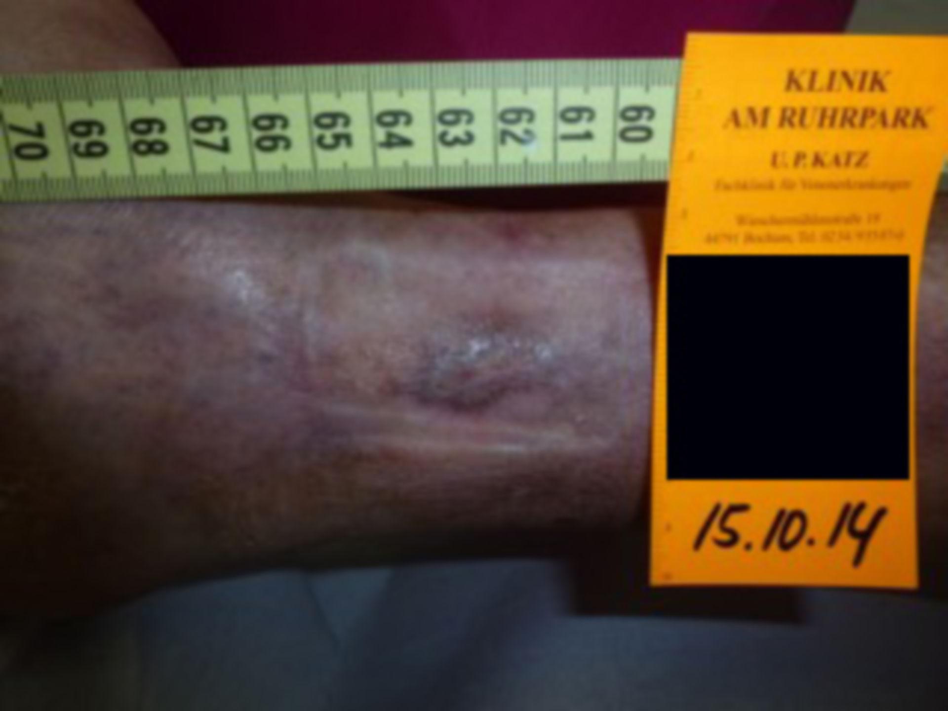Úlcera de la pierna - abierta por 18 meses (9)