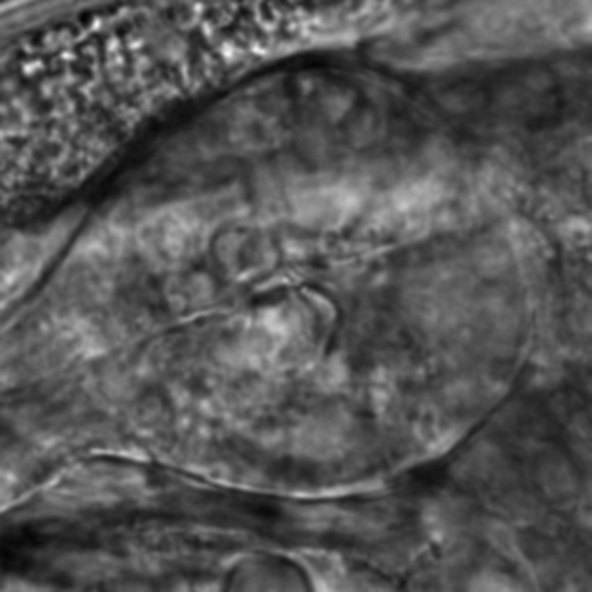 Caenorhabditis elegans - CIL:2758