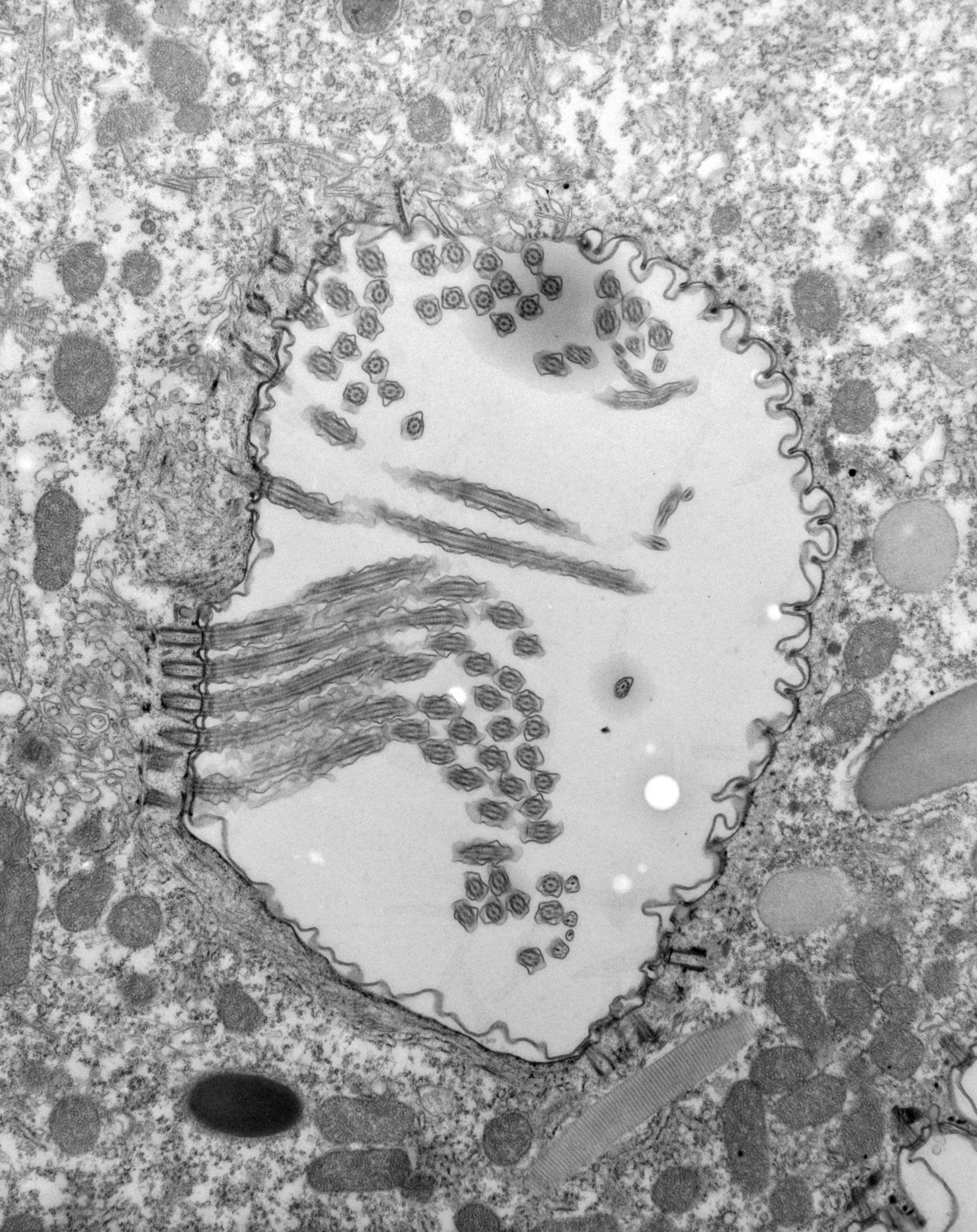 Paramecium caudatum (apparato orale) - CIL:39158