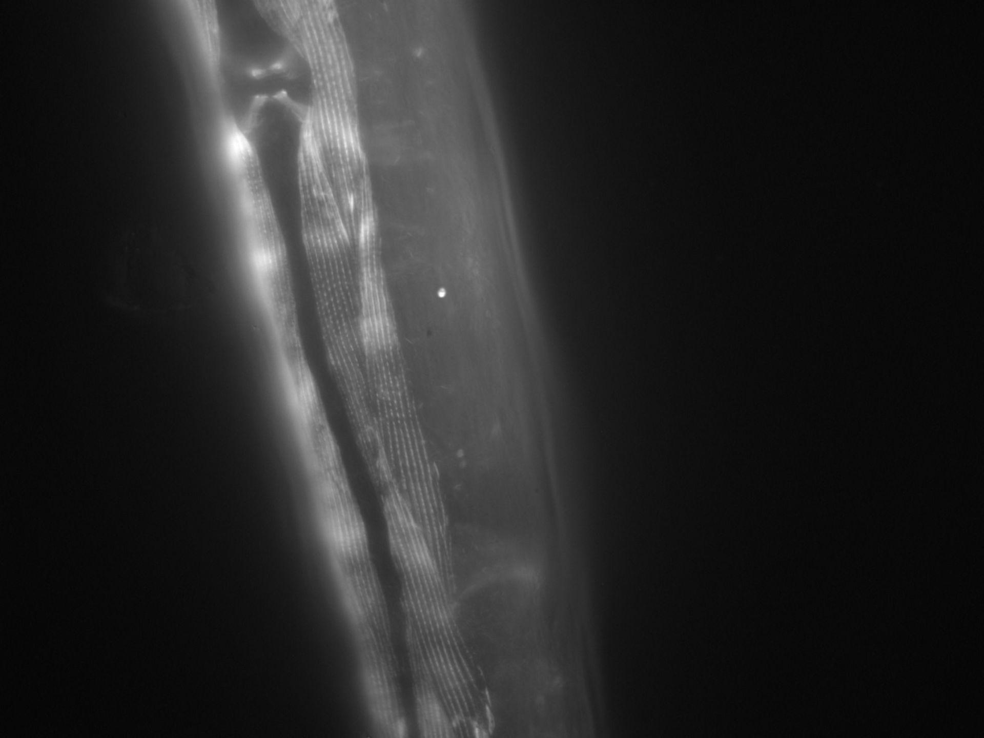 Caenorhabditis elegans (Actin filament) - CIL:1010