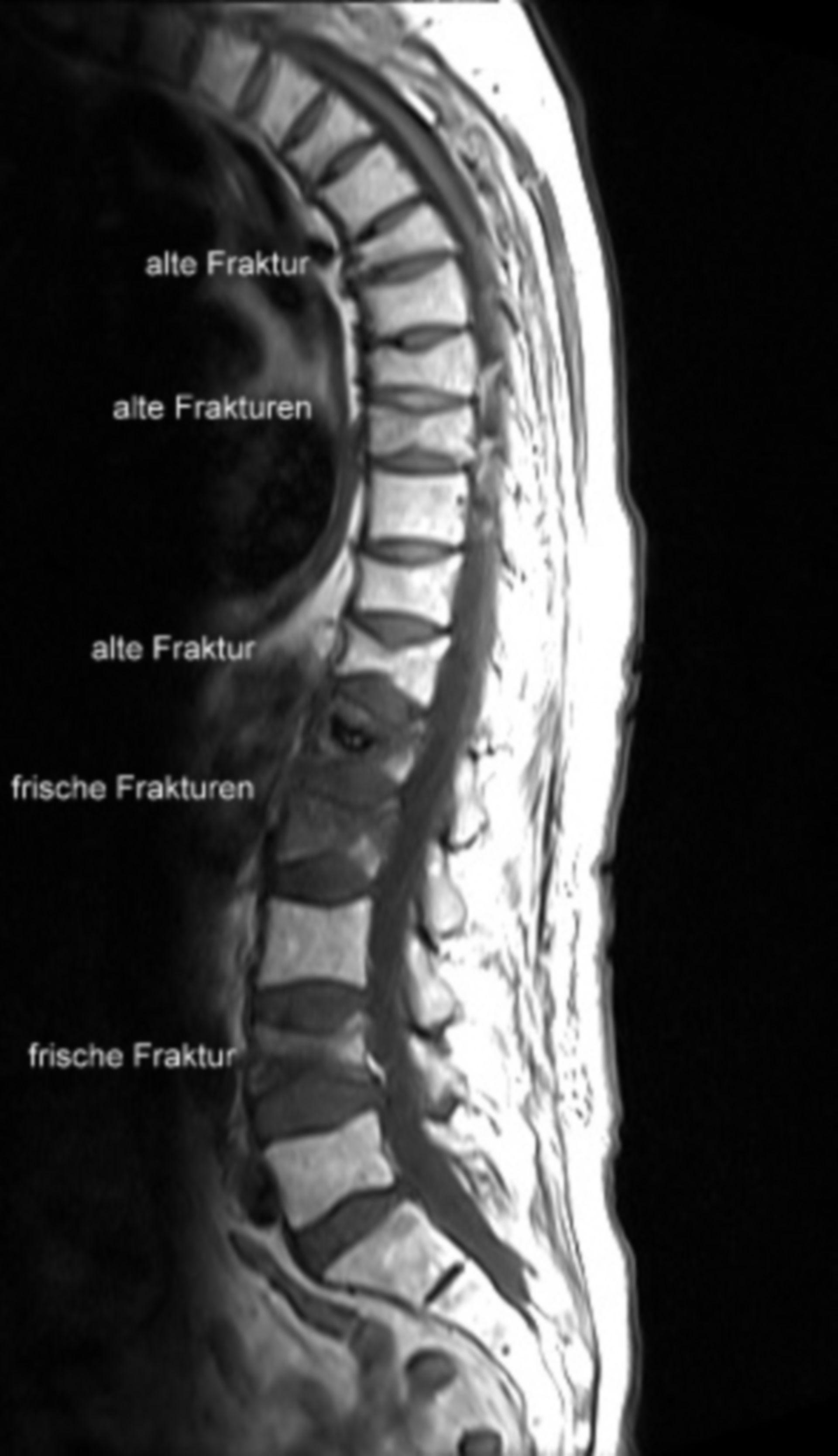 Osteoporosis - Multiples fracturas recientes y antiguas de las vertebras (etiquetada)