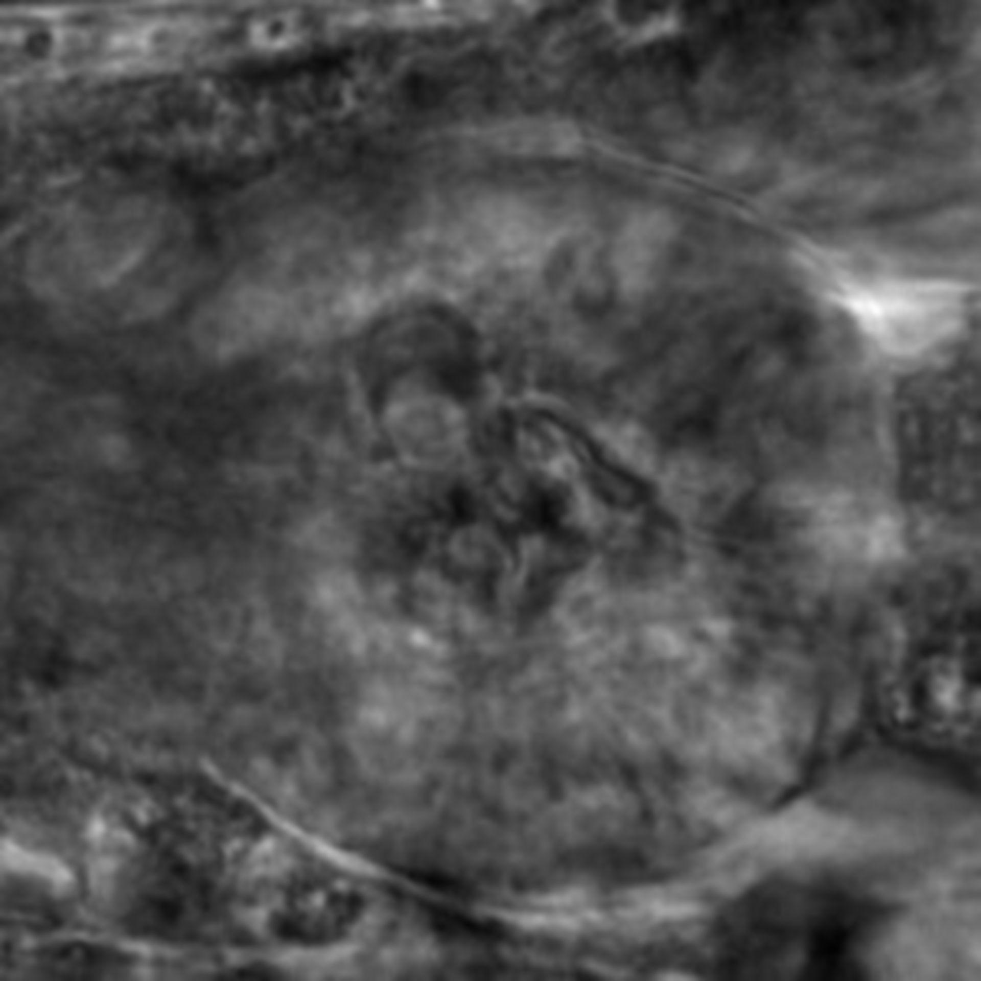 Caenorhabditis elegans - CIL:2259