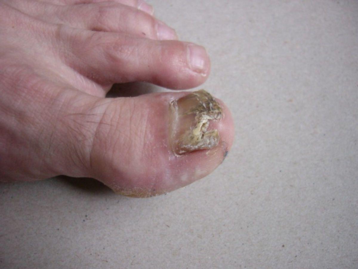 Bakterielle Nagelinfektion durch E. cloacae