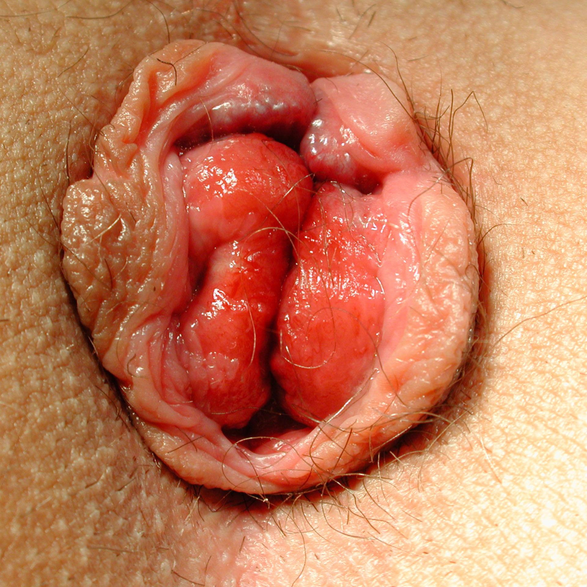 Hämorrhoidalprolaps