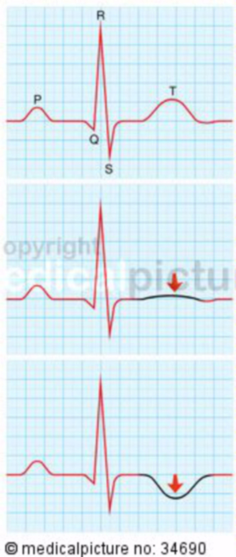 ECG stress Cardiomiopatia