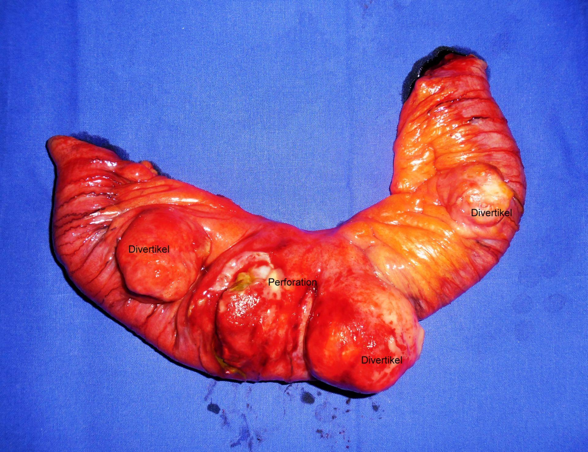 Diverticolite dell'intestino tenue - resetto