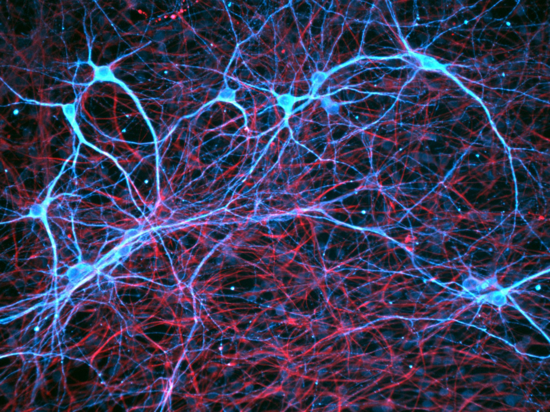 Neural stem cells - Image of the Week - September 7, 2015 - CIL:48107