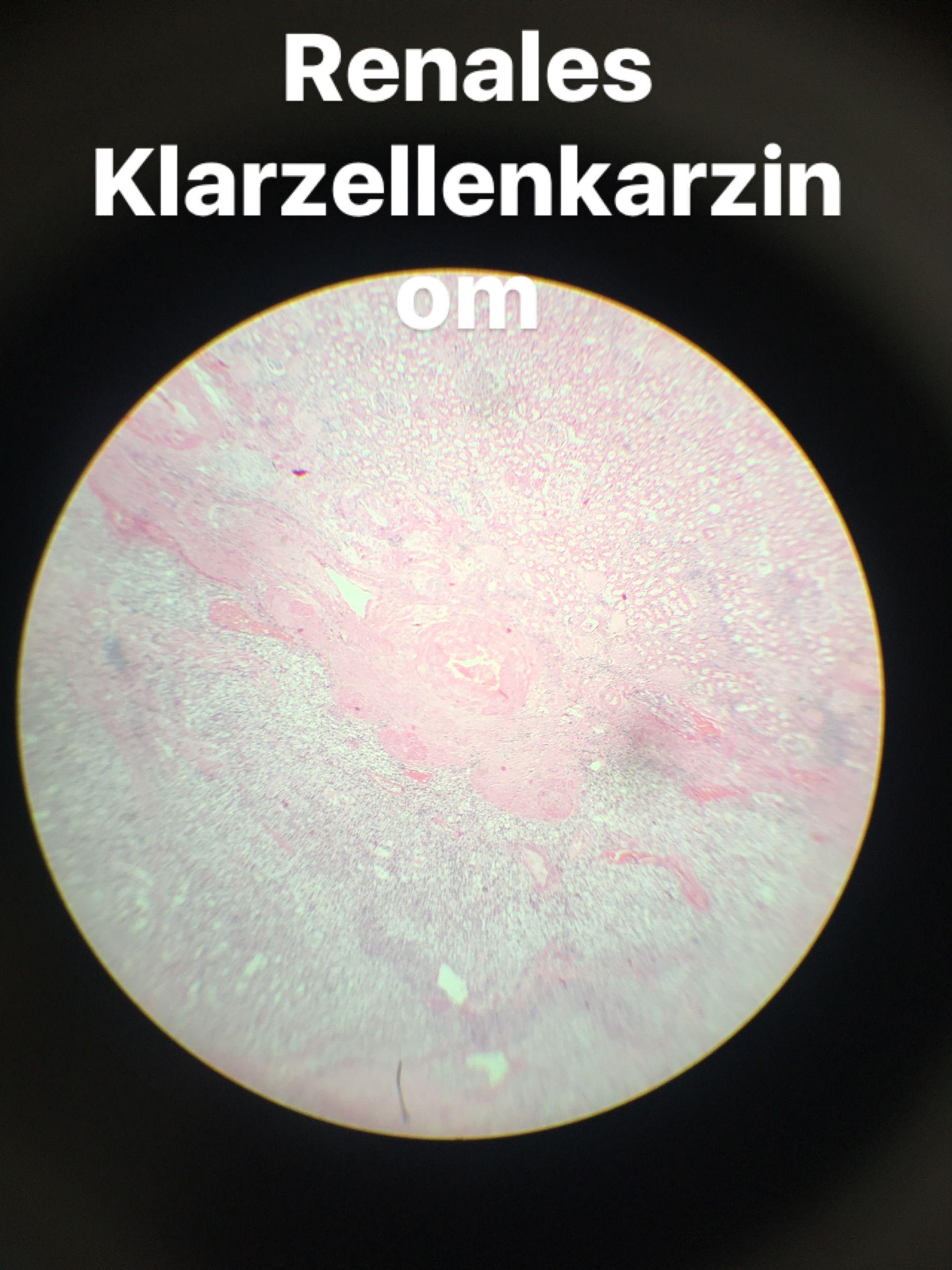 Renales Klarzellenkarzinom